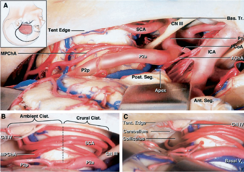 Figure 2: The left-sided subtemporal approach to the perimesencephalic and interpeduncular fossae is demonstrated (upper image). The oculomotor nerve is an important landmark to identify early so that the dissection is not inadvertently performed more posteriorly (lower images). The subtemporal route may be extended via transection of the tentorium for low-lying basilar bifurcation aneurysms (images courtesy of AL Rhoton, Jr).