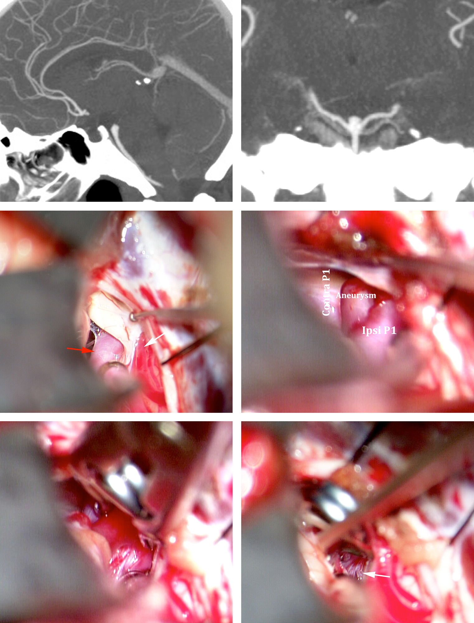 Figure 11: A low-lying basilar bifurcation aneurysm was tackled via a right-sided subtemporal approach (upper row). The oculomotor nerve is the cornerstone landmark for this approach; the PCA (red arrow) and SCA (white arrow) were identified based on the nerve (center of the field) (middle row). Two tentorial sutures were used to retract the tentorium while a small tentorial incision between the sutures facilitated proximal control over the basilar trunk. A straight fenestrated clip kept the ipsilateral P1 and its perforators out of harm's way (lower row-white arrow).
