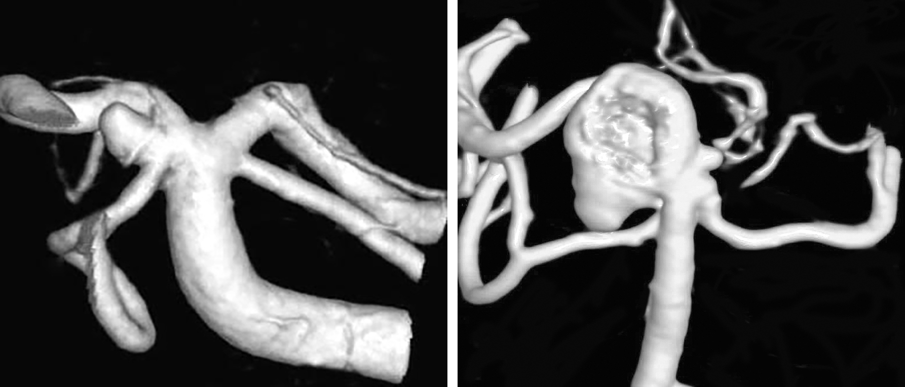 Figure 1: A classic SCA aneurysm is demonstrated (left). Note the relation of the neck to the origin of the SCA. Dysmorphic forms of this aneurysm are not uncommon (right).