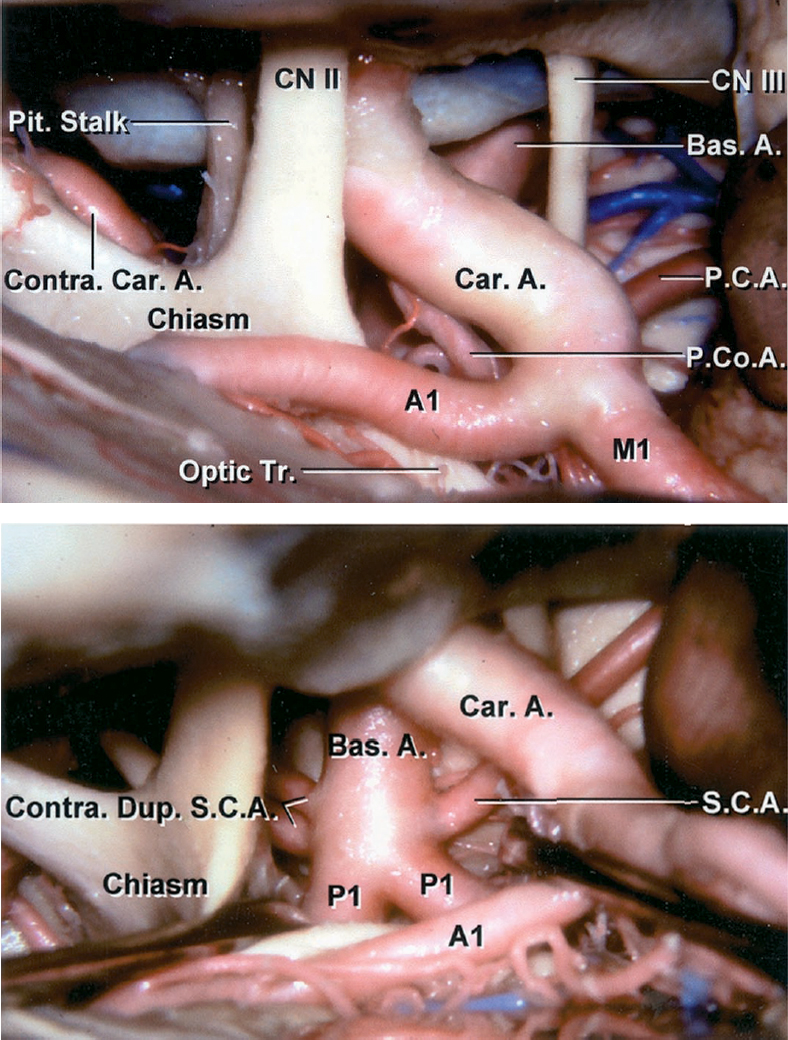 Figure 2: The operative pathway toward the right SCA is shown. Note the working space through the opticocarotid triangle. The anatomy of the SCA relative to other posterior circulation vasculature is shown (images courtesy of AL Rhoton, Jr.)