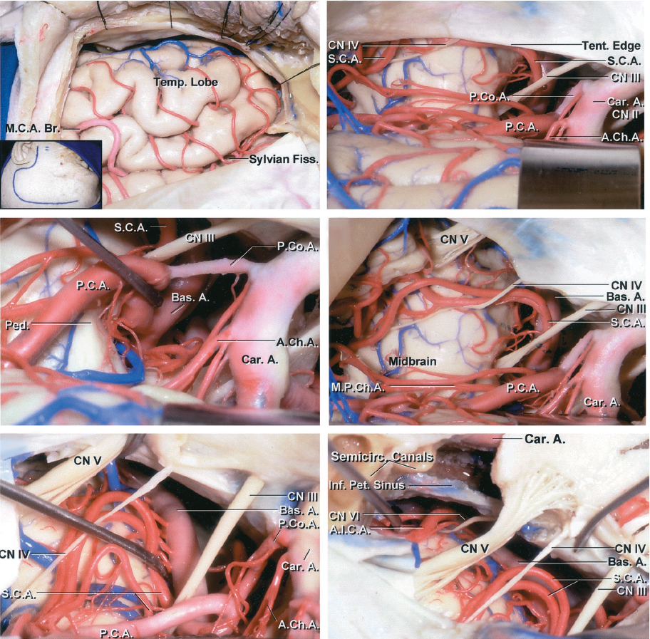Figure 4: The subtemporal route may be extended via transection of the tentorium for low-lying SCA aneurysms (right middle image.) The trochlear nerve can be mobilized out of its dural canal within the tentorial incisura before it enters the cavernous sinus. This maneuver will expand the infratrochlear working channel (left lower image.) The anterior petrosal approach further expands the operative corridor (right lower image)(images courtesy of AL Rhoton, Jr.)
