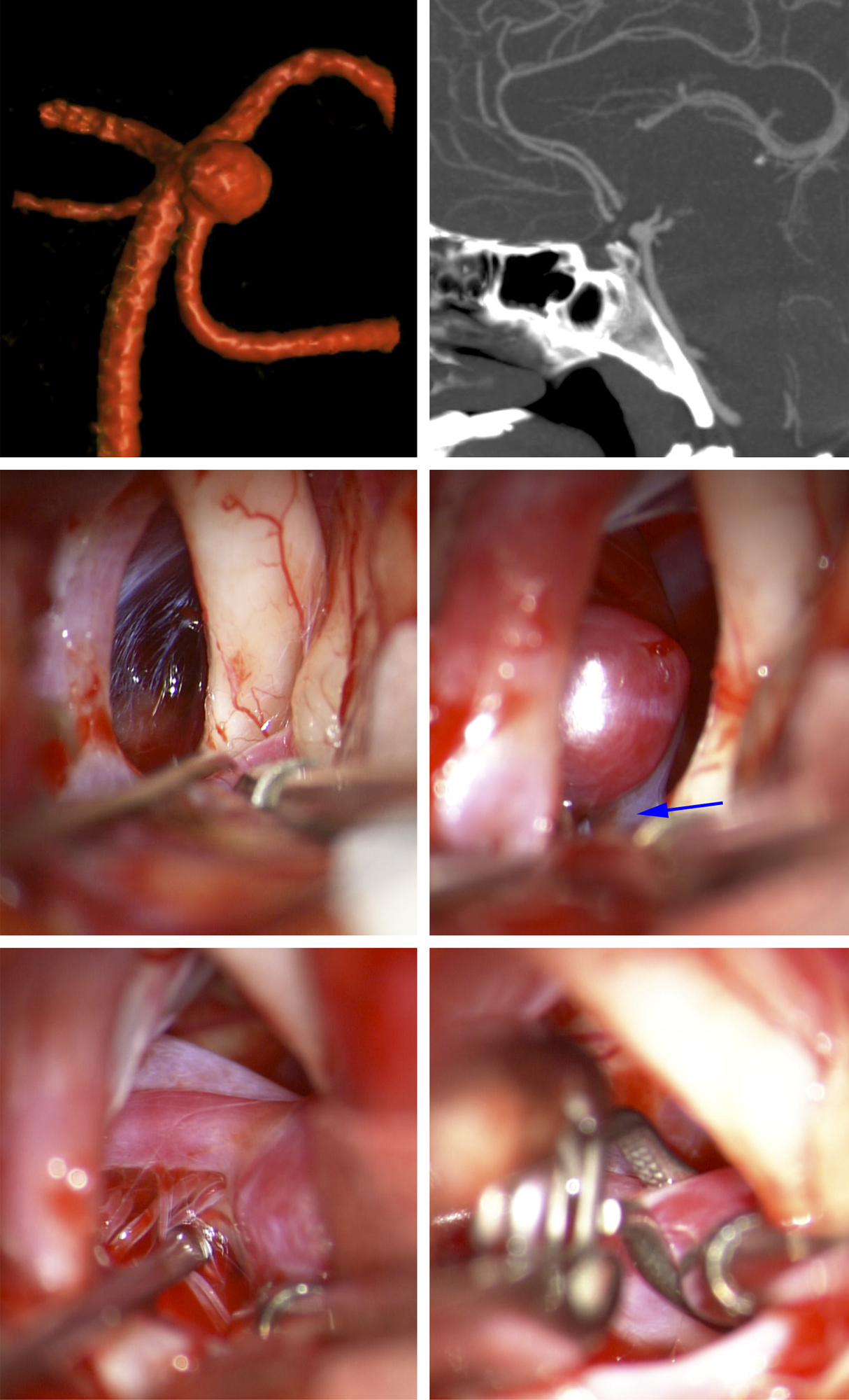 Figure 10: A relatively classic SCA aneurysm was noted on a sagittal CTA and 3D angiogram (top row). Note the location of the aneurysm neck just below the posterior clinoid process. Proximal vascular control was expected to be a challenge and unreliable. A pterional craniotomy explored the aneurysm; the subfrontal brain was mobilized and the dome was discovered within the interpeduncular cisterns (second row, the blue arrow marks the origin of the PCA). The perforators were gently dissected away from the aneurysm neck while the aneurysm was slightly deflated via temporary inflation of a balloon endovascularly within the basilar artery. Next, an angled curved clip ligated the aneurysm effectively (third row).
