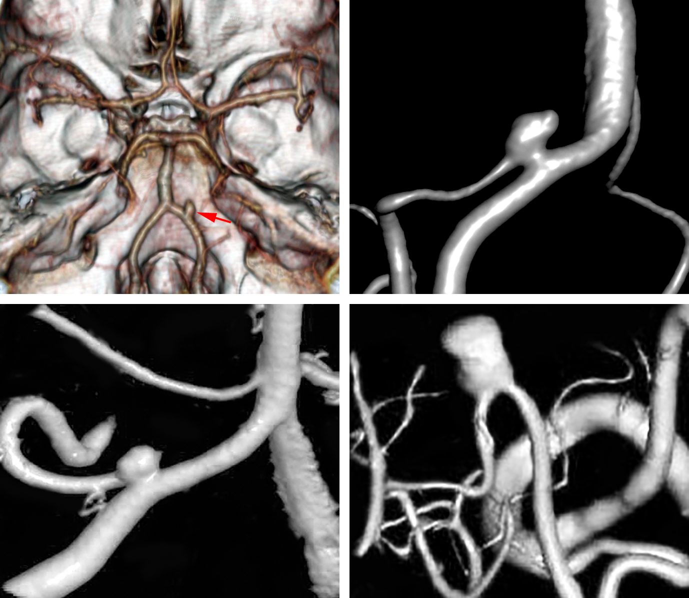 Figure 1: A medially located PICA aneurysm is demonstrated (upper images). Another more classic proximal (left lower image) and more distal AChA (right lower image) aneurysms are also included. Note the typical finding of the PICA's origin incorporated into the aneurysm neck.