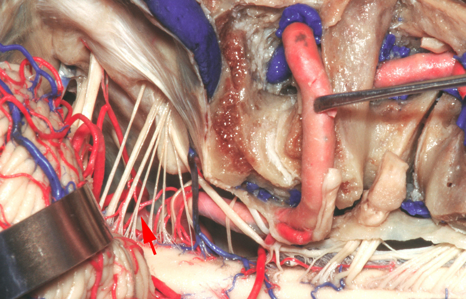 Figure 2: Operative anatomy of the lower cerebellomedullary cisterns is demonstrated. Partial condylectomy was performed in this specimen; this maneuver is unnecessary for almost all PICA aneurysms. The red arrow points to the origin of the PICA on the VA. Note the intimate relationship of these vessels to the lower cranial nerves (image courtesy of AL Rhoton, Jr.)