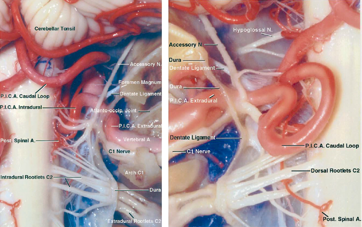 Figure 3: The morphology of the right intradural (left image) and left extradural (right image) PICA from a posterior view is depicted in these photos. The first three major PICA segments, namely the anterior medullary, lateral medullary and tonsillomedullary segments, also provide arterial supply to the brainstem. Any segment of the PICA in close proximity of the brainstem can provide vascular support to the brainstem and should be preserved (images courtesy of AL Rhoton, Jr).