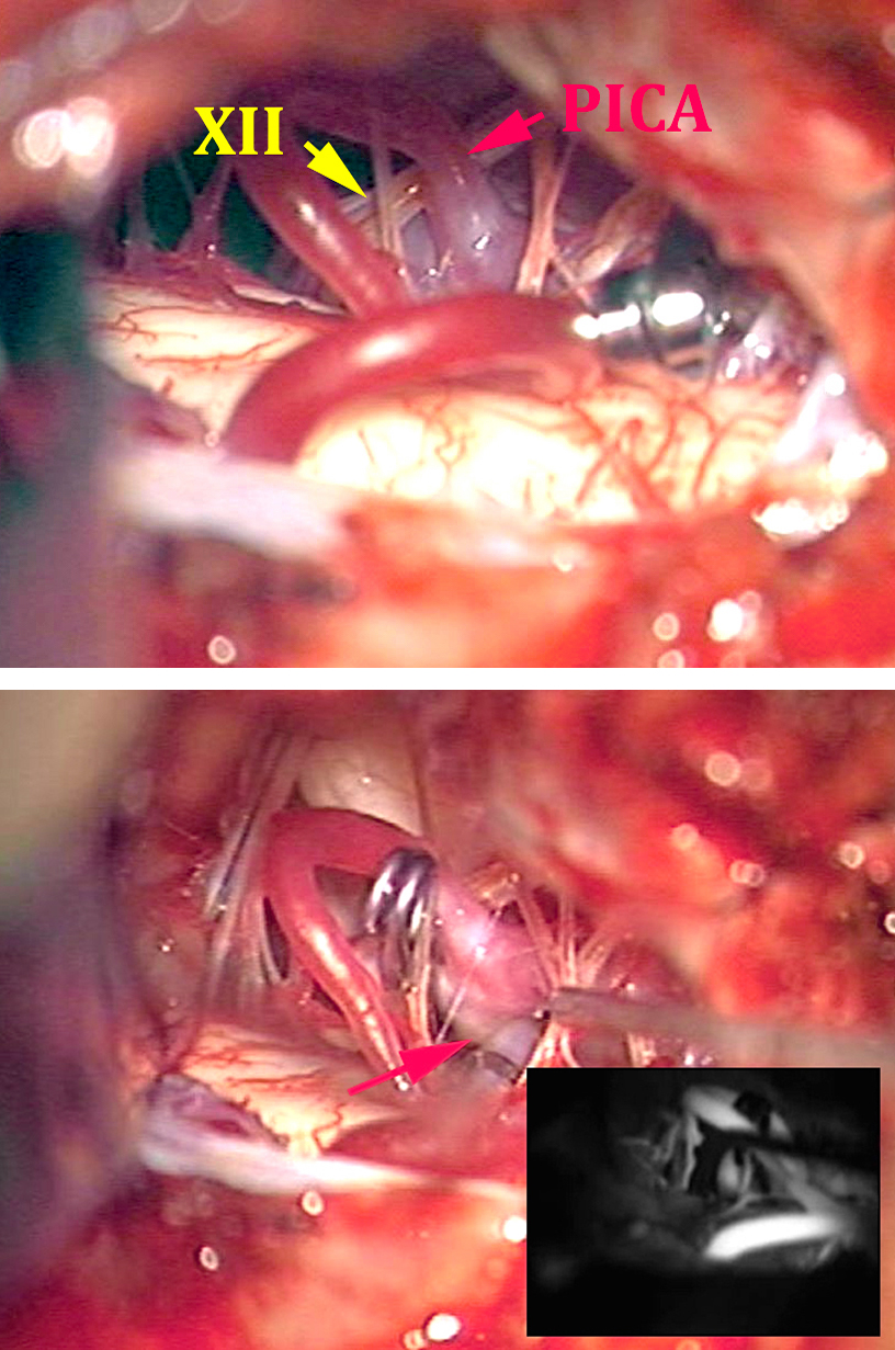 Figure 11: PICA aneurysms may be clip ligated via straight clips based on the configuration of the local anatomy. The temporary clip is placed on the proximal VA (upper image) and the location of the distal VA is marked with the red arrow (lower image).