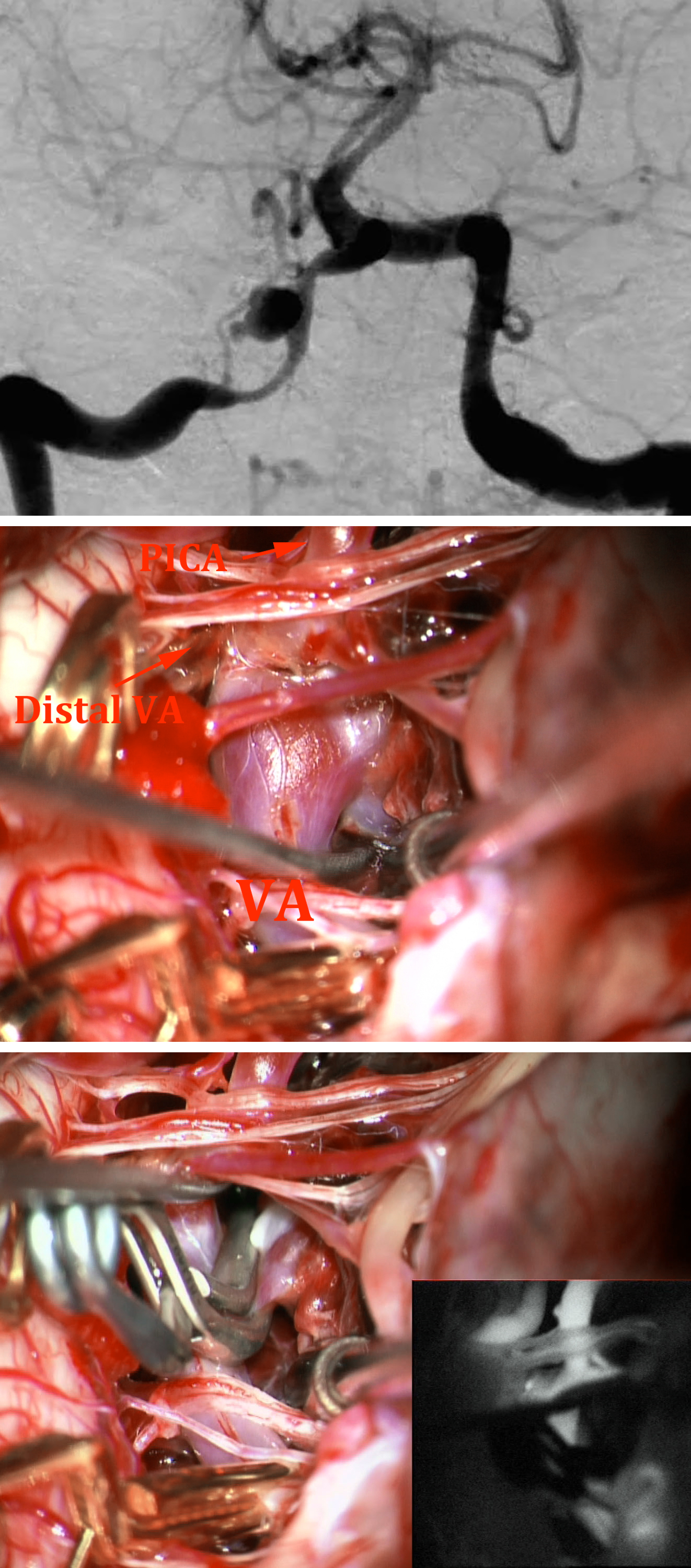Figure 12: This right-sided PICA aneurysm (upper image) was clipped using an angled clip. Both proximal and distal temporary clipping (middle photo) was required because of the suspicion of a pseudoaneurysm. The final clip construct is demonstrated (lower photo).