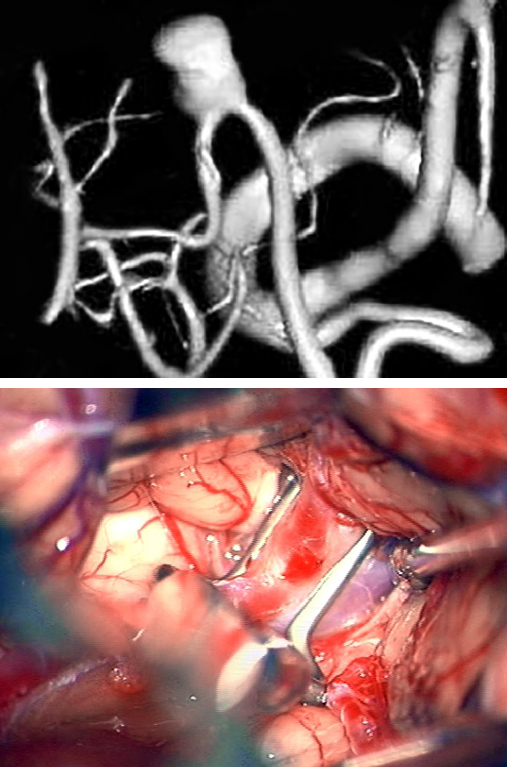 Figure 14: A distal PICA aneurysm with a fusiform neck (upper image) along the floor of the fourth ventricle was clipped using an angled fenestrated clip (lower image) via the telovelar approach.