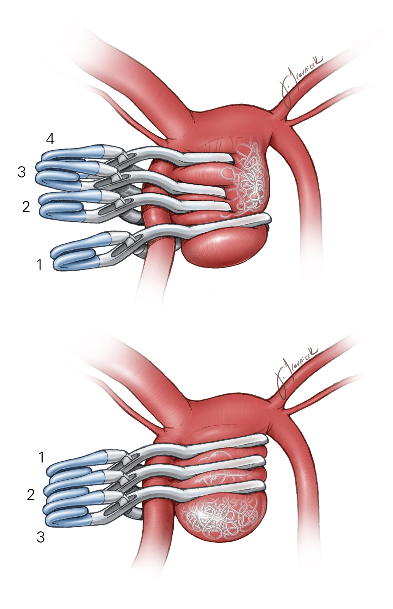 Figure 1: Clipping of an ACoA aneurysm after a prior partial coiling attempt is illustrated. Short fenestrated clips are stacked to trap the coiled material in the lateral section of the aneurysm, and a longer distal clip occludes the remaining patent dome. These clips are placed in order from 1 to 4 using an understacking method (top image). Three longer fenestrated clips are used to occlude the entire aneurysm using an overstacking method (bottom image). The coil material is pinched between the clip blades. Please see more details in the  Permanent Clip Application  chapter.
