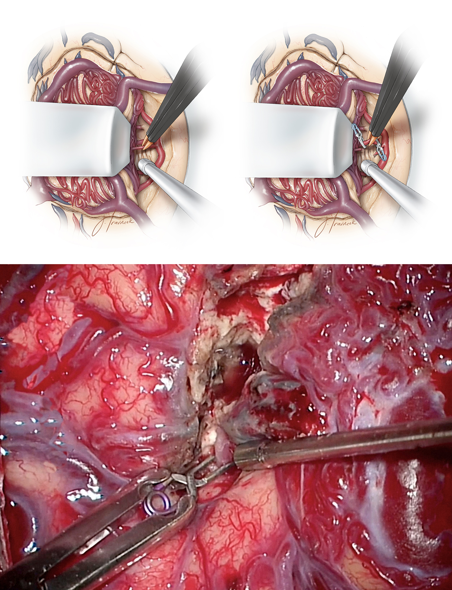 Figure 7: The surgeon should not overzealously sacrifice  en passage  vessels along their cortical and pial surfaces. Microclips are useful to collapse large terminal feeding arteries before their coagulation where they enter the nidus. These large diameter arteries have thickened walls and occasionally may not readily respond to or collapse with bipolar electrocautery alone.