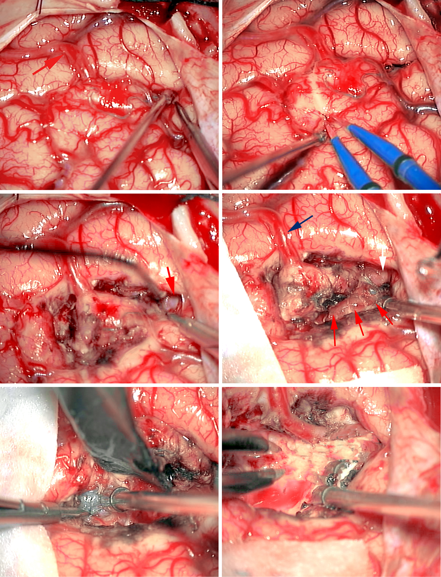 Figure 12: The basic steps in AVM resection are demonstrated. The AVM was only apparent on the surface based on a questionable feeding artery versus draining vein leading to the subcortical AVM (upper left image-arrow). Pial dissection was performed (upper right photo). Subarachnoid dissection revealed an  en passage  artery (middle left image-arrow). Parenchymal disconnection exposed the borders of the nidus (middle right photo-arrows); the identity of the cortical vessel (blue arrow) is still unknown, however, it is carefully preserved. Embolized vessels were found and assisted with white matter dissection (lower left photo). The small draining veins were sacrificed after complete AVM disconnection. The initial cortical vessel (upper left image-red arrow) was finally identified as an  en passage  artery that was spared (lower right image).