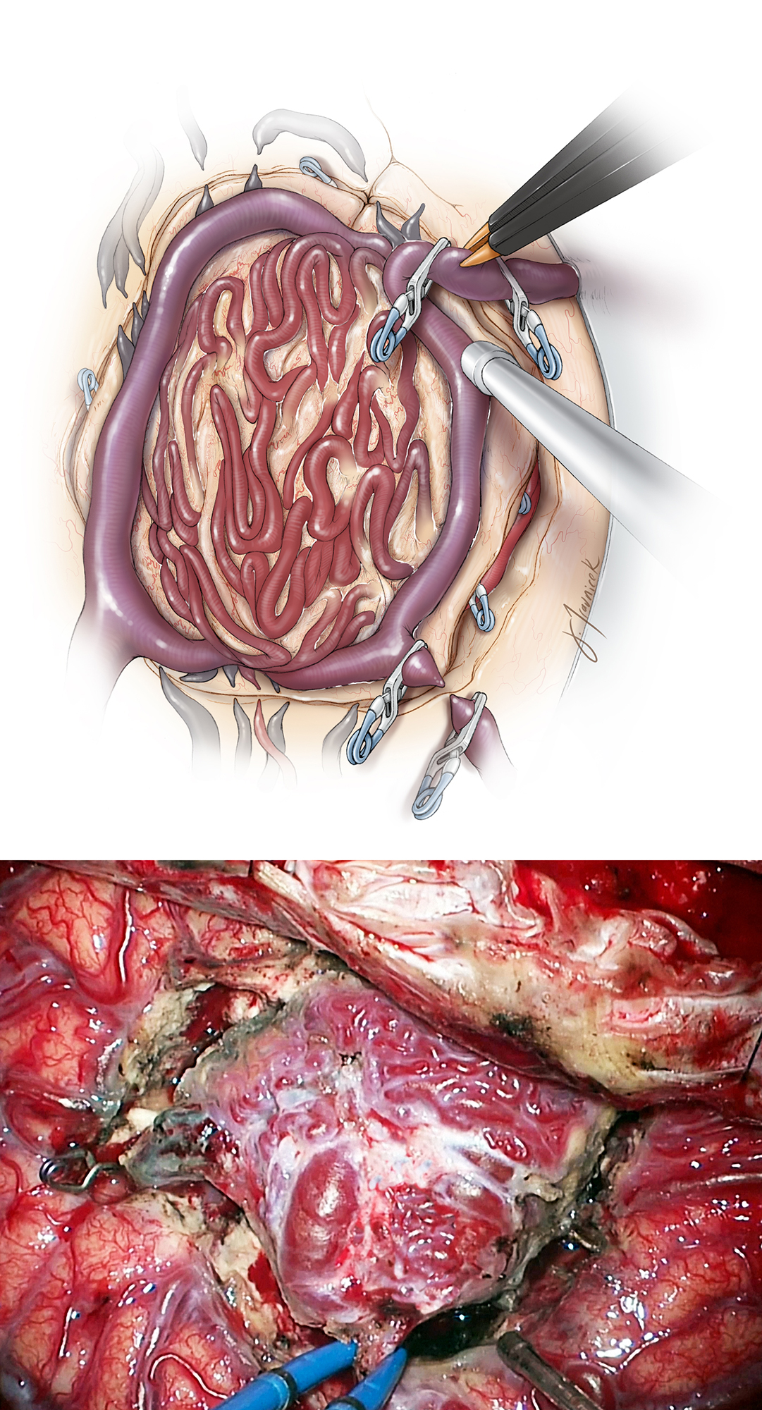"Figure 13: The ""temporary occlusion"" test is necessary before the primary or secondary veins are transected. If AVM swelling is encountered upon temporary vein occlusion, additional devascularization of the nidus is necessary before venous sacrifice."
