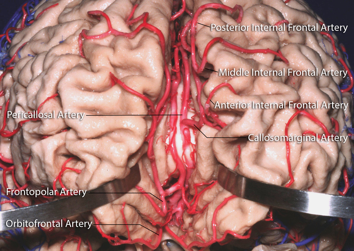 Figure 2: The ACA branches supply most of the medial frontal AVMs. The initial interhemispheric dissection allows timely control of the dominant feeding vessels to these AVMs (photo courtesy of AL Rhoton, Jr).