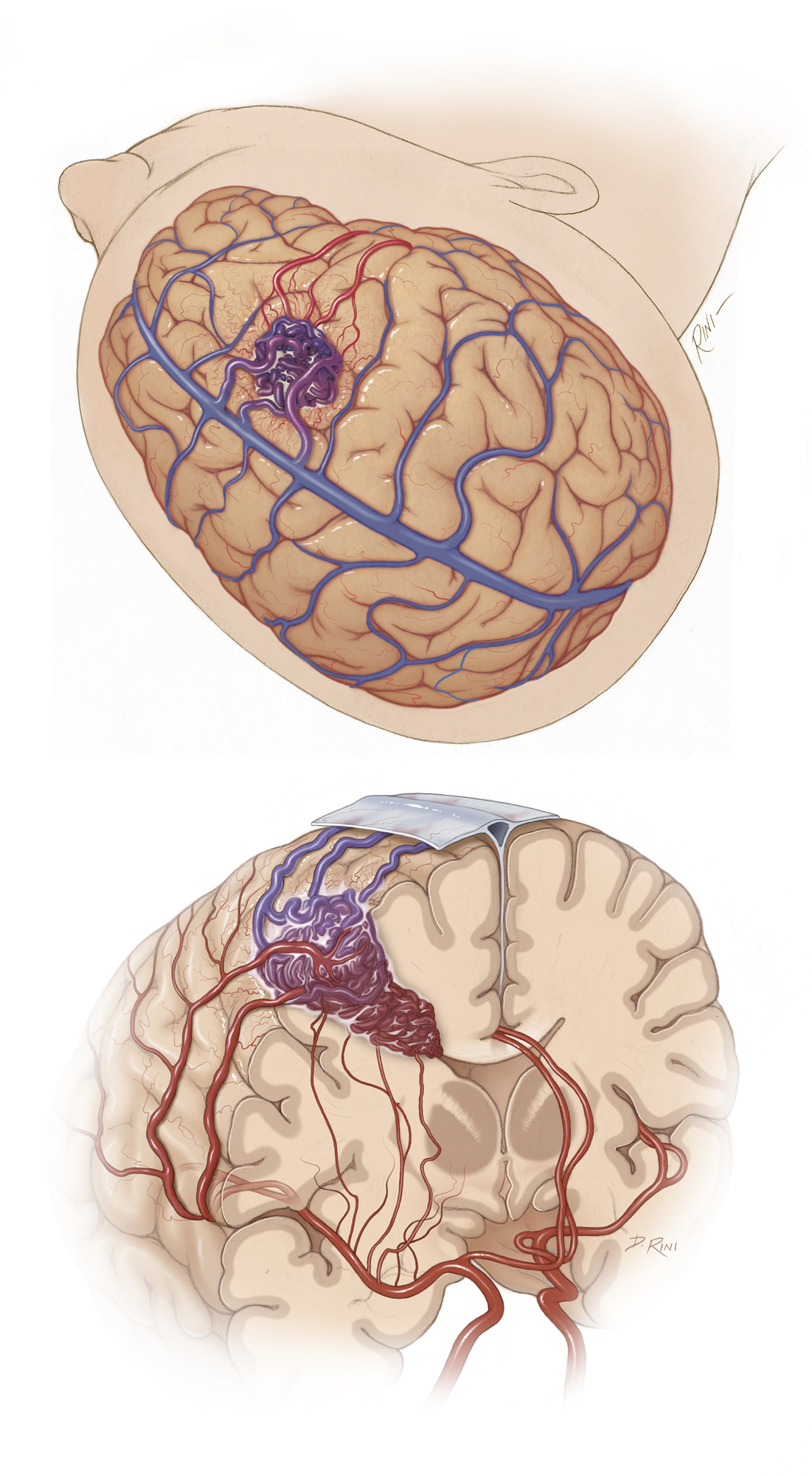 Figure 3: The cortical branches of the superior trunk of the MCA feed most of the lateral frontal AVMs. These branches can be found at the inferior margin of the AVM and are tackled first during circumdissection. Occasionally there may be some feeders arising from the ACA, depending on the complexity of the nidus and its proximity to the midline. Large lesions harbor feeders from the lateral lenticulostriate branches of the MCA that supply the medial and inferior walls of the AVM. These branches are the most difficult to control and can be secured when the dissection continues within the deep white matter. The venous drainage system is superficial and joins the superior sagittal sinus (mainly) or the superficial Sylvian veins.