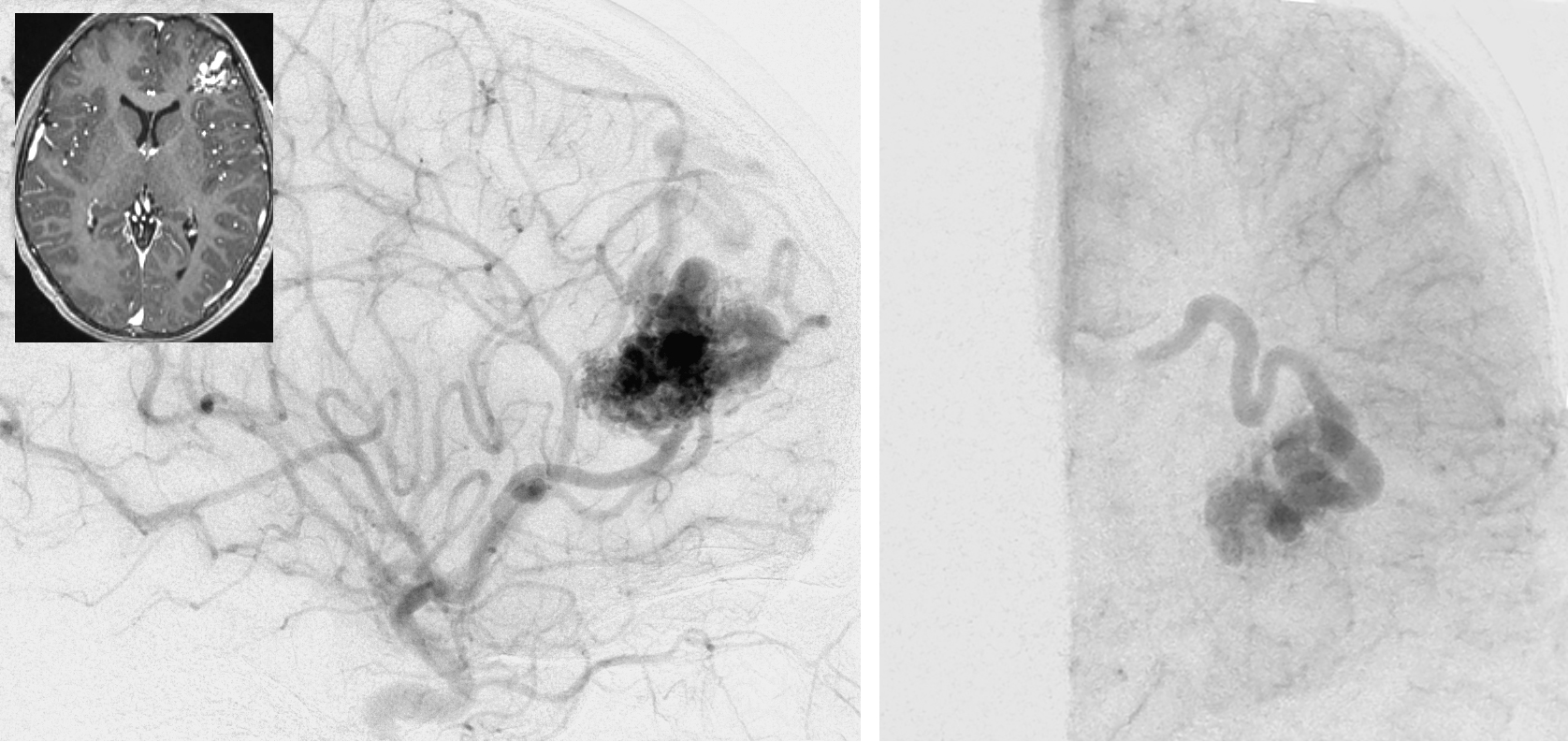 Figure 4: A simple lateral frontal AVM, primarily fed by the MCA branches, is demonstrated (lateral view, ICA angiogram-left image). The primary draining vein joins the superior sagittal sinus (anteroposterior view, ICA angiogram-right image).