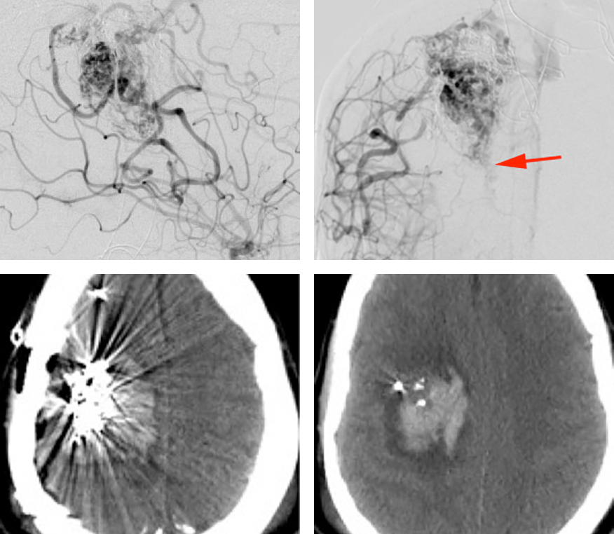 Figure 5: This posterior lateral frontal AVM was aggressively embolized which may have led to hypertrophy of its deep white matter feeders (upper row, anteroposterior and lateral ICA angiograms-red arrow). The resective operation was performed early in my career. Unfortunately, I did not manage the dominant deep feeders adequately. Intraoperatively, a large white matter feeder retracted into the brain and led to an intracerebral hemorrhage (lower row-postoperative CT) and resultant uncontrollable cerebral tension, mandating a premature abortion of the procedure and closure of the case. Partial devascularization of the AVM led to its significant shrinkage, making it very amenable to radiosurgery. The patient ultimately recovered well but suffered from a permanent minor hemiparesis.