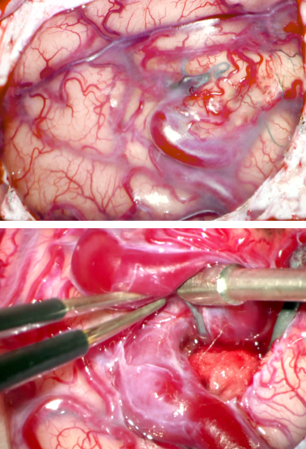 Figure 6: The frontal AVM in Figure 3 is exposed (upper image); there is minimal nidal cortical representation. Note the generous exposure of the surrounding normal cortices. The primary vein was carefully isolated and used as a road map to find the nidus with minimal disruption of the surrounding cortices (lower image). The piece of cotton on the right side of the vein was used to keep the dissection planes open.