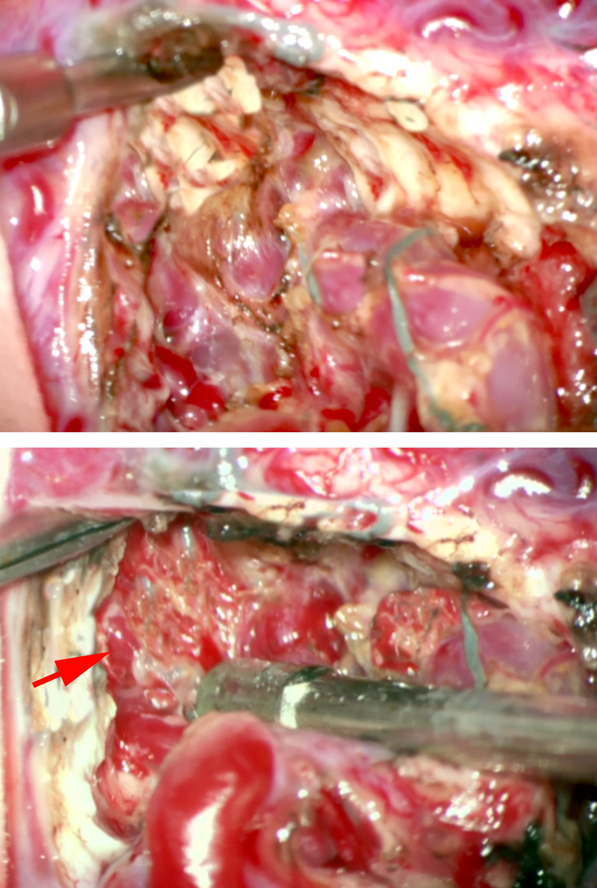 Figure 7: The compact nidus of the AVM allowed me to dissect on the walls of the nidus without significant bleeding (top). The thin-walled white mater perforators at the depth of the dissection cavity are demonstrated (bottom photo-arrow).