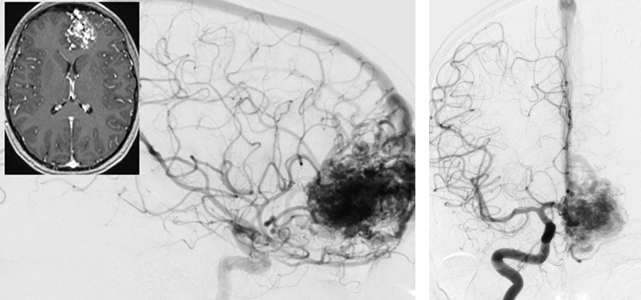 Figure 8: An anterior medial frontal AVM (lateral ICA angiogram-left) is shown with its primary draining vein joining the superior sagittal sinus (anteroposterior ICA angiogram-right). There is minimal or no lateral cortical presentation.