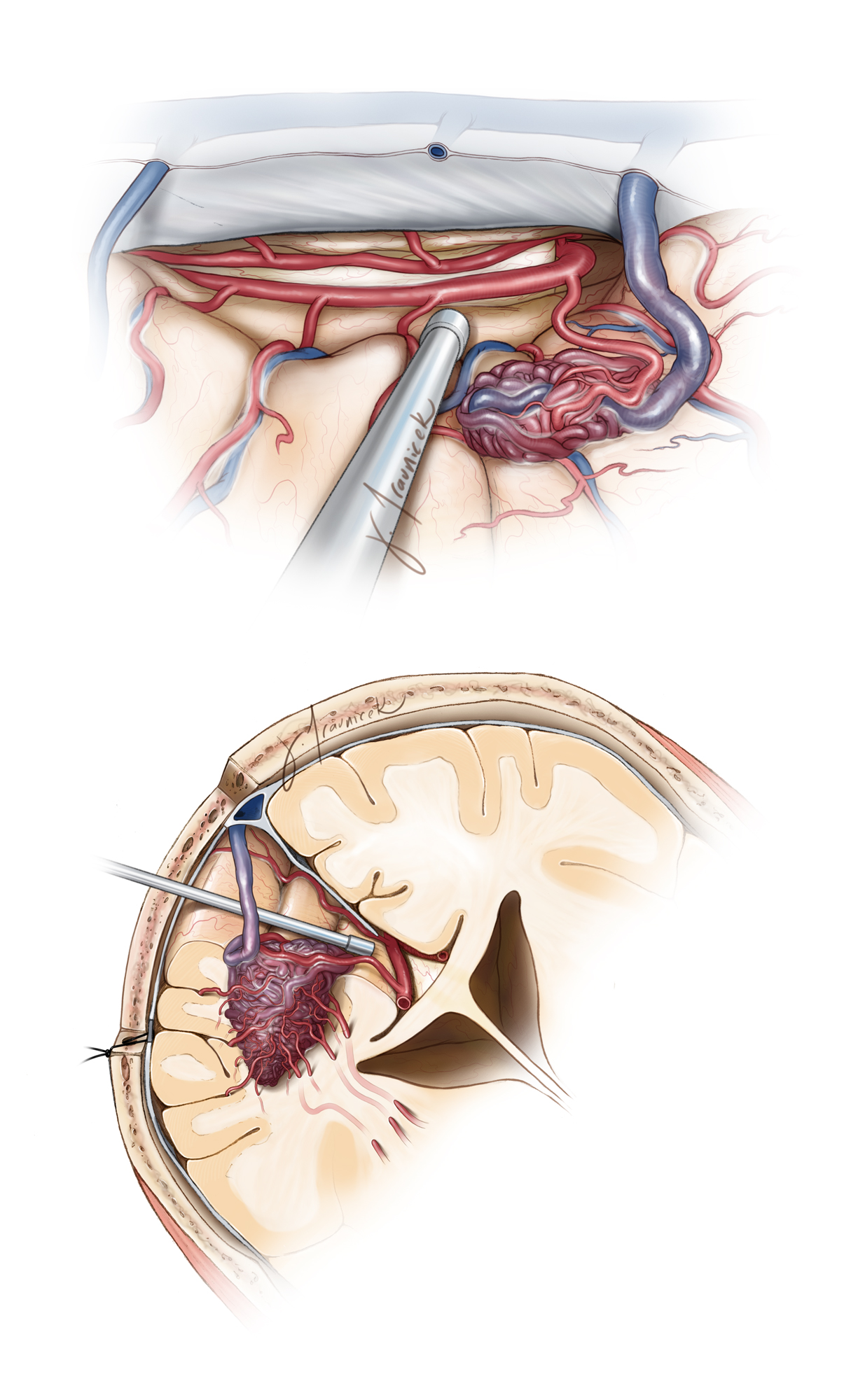 Figure 9: The angioarchitecture of a medial frontal AVM is illustrated. Note the tangential operative working angle toward the surface of the AVM (surgeon's view, top image) and the feeding vessels emerging from the callosomarginal and pericallosal arteries. The bottom sketch emphasizes the location of the inferior deep white matter feeders from the lenticulostriates. These white matter feeders can be especially problematic in large AVMs since they are hiding within the operative blind spot.
