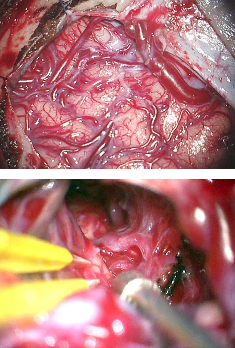 Figure 10: The medial frontal AVM in Figure 8 is exposed. The primary draining vein was released along its path within the subdural space (upper image). The interhemispheric approach isolated the large feeding vessels arising from the A2's.