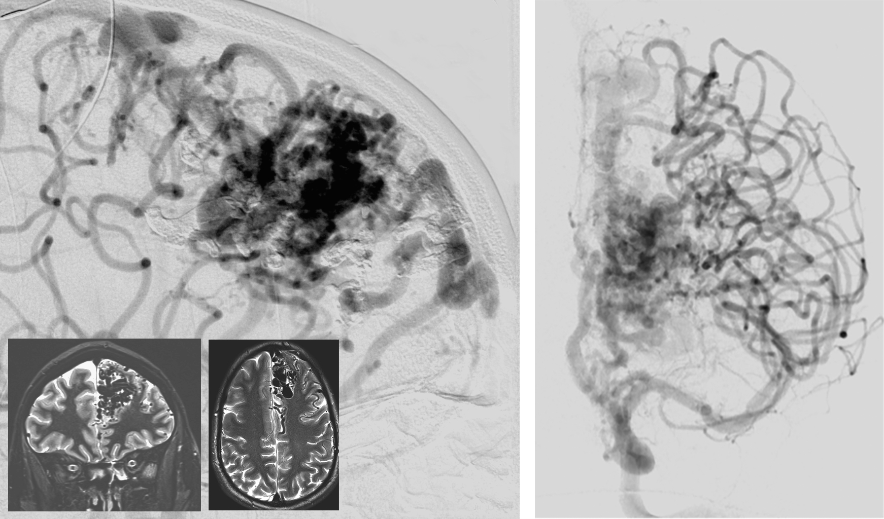Figure 11: An anterior paramedian frontal AVM, fed by both the MCA and ACA feeders, is demonstrated. Note that there are numerous artery-to-artery connections at the posterior aspect of the nidus. These connections are not considered part of the nidus are should be left intact.