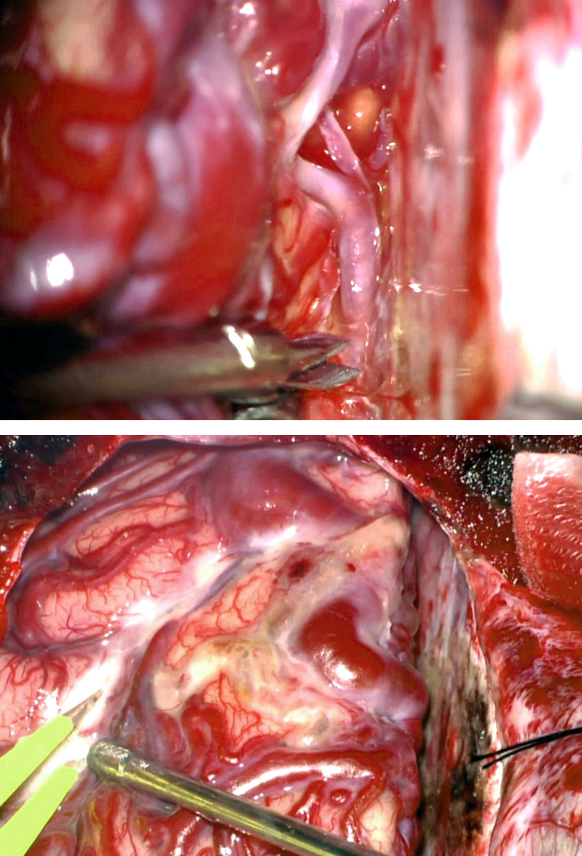 Figure 12: The AVM in Figure 10 is first disconnected along its interhemispheric margin from the ACA feeders (upper image). Next, the MCA supply is disrupted on the lateral convexity using pial incisions guided by intraoperative CTA navigation (lower image). The head is in the anatomically neutral position.