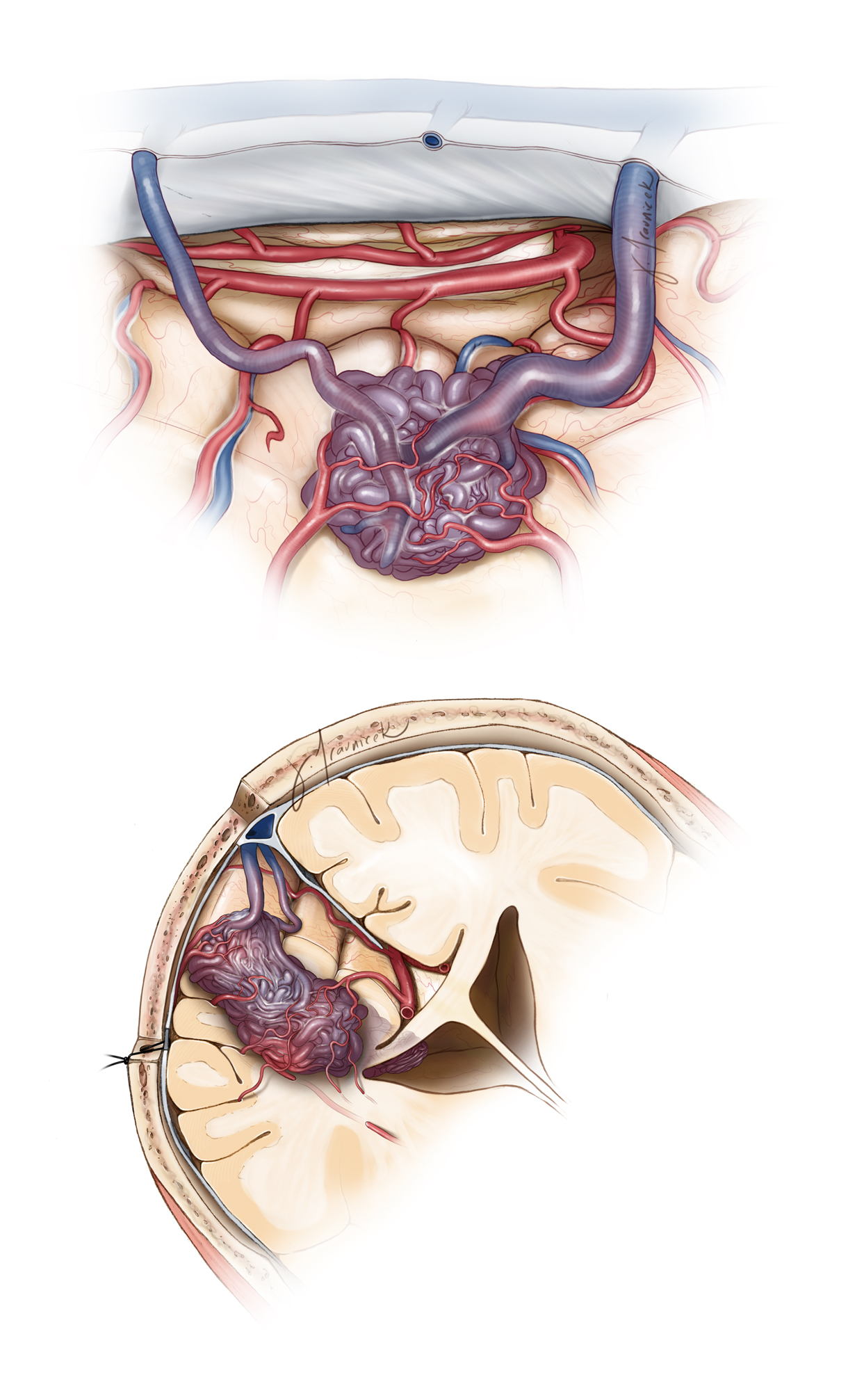 Figure 13: Note the anatomy of a typical paramedian malformation from the surgeon's view (top) and coronal perspective (bottom). The deep white matter and ependymal feeders at the apex of the lesion are the most difficult part of the operation. Adequate and thorough mobilization of the superficial parts of the nidus is required before the deep portions of the AVM are handled so that flexible working angles are available for managing bleeding at the depth of the resection cavity.