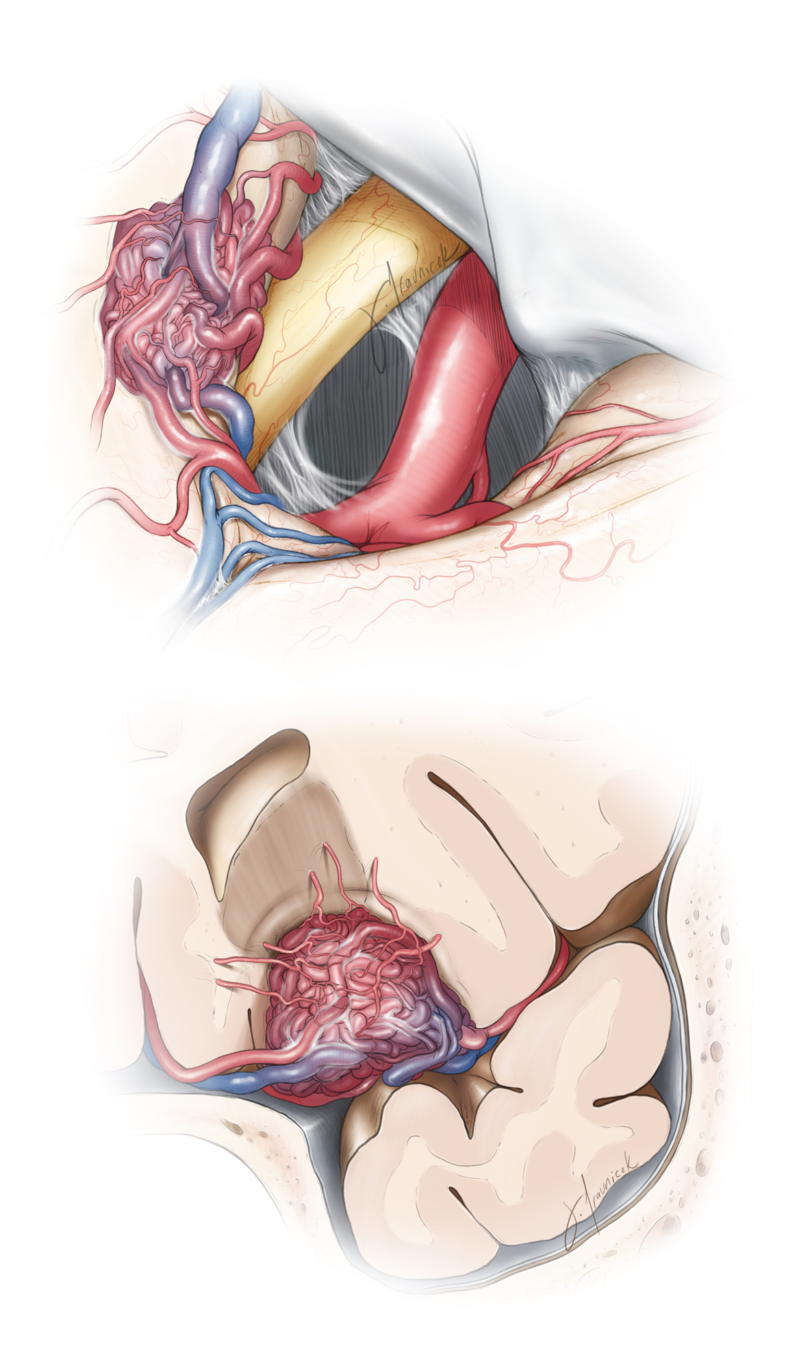 Figure 14: The vascular anatomy of a medial basal frontal AVM is illustrated. The medial ACA feeders can be dominant and potentially difficult to control during the early stages of the operation (surgeon's view, right-sided pterional approach, top sketch). The draining veins can limit the working angles of the surgeon and restrict the mobilization of the nidus after its circumferential disconnection. The primary draining vein should be spared while the secondary ones scarified after most of the nidus is isolated. The deep white matter feeders are within the surgeon's blind spot (coronal view, bottom sketch).