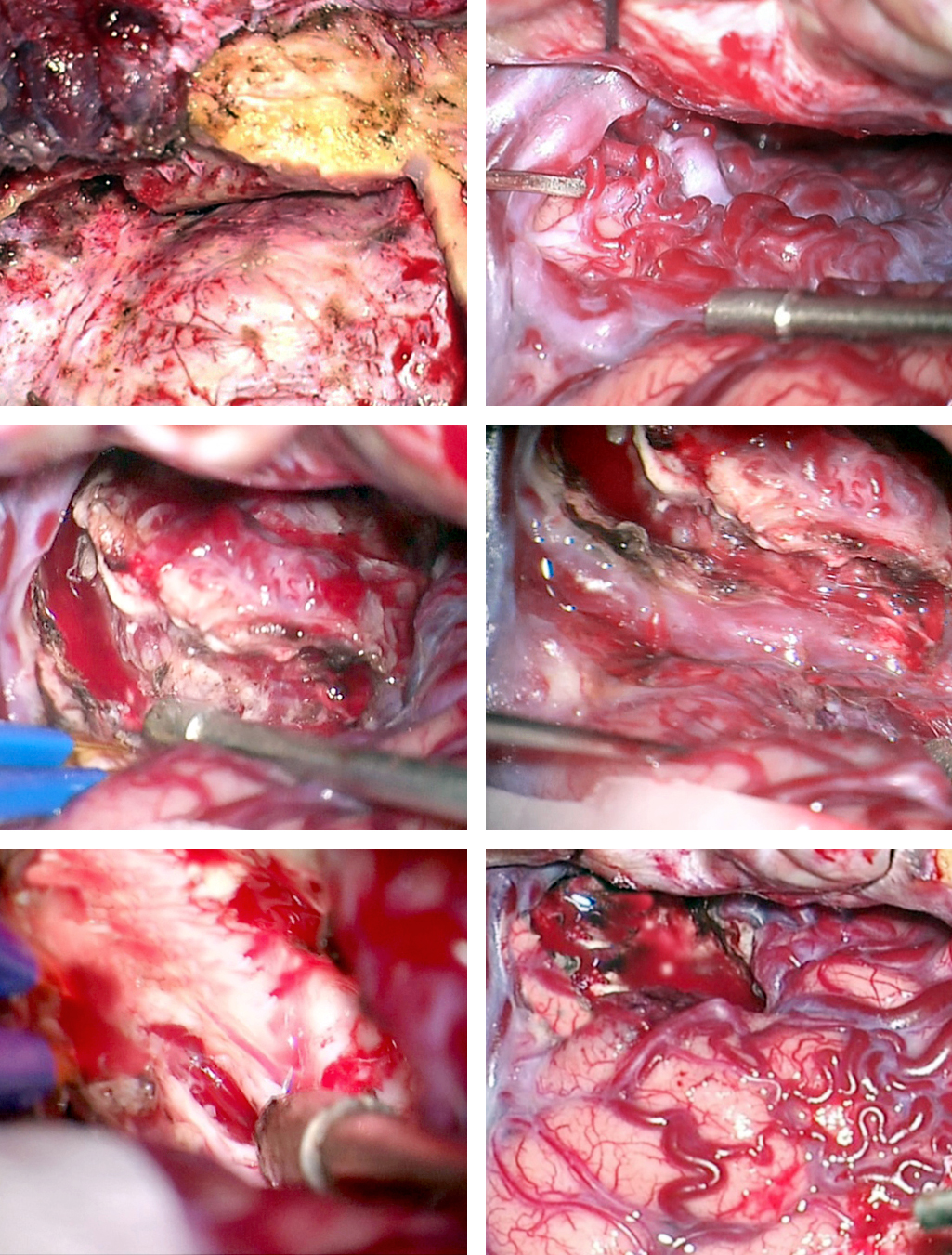 Figure 16: Intraoperative findings for another basal frontal AVM are included. Note the osteotomy over the orbital roof provided an adequate inferior-to-superior operative trajectory without excessive frontal lobe retraction. An orbitozygomatic craniotomy is rarely necessary. Subarachnoid dissection, anterior to the Sylvian fissure, allowed disconnection of predominant AVM feeders from the MCA (upper row). The nidus was skeletonized and the draining vein was preserved but mobilized to provide access to the deep portions of the AVM (middle row). Next, the deep white matter feeders were found and sacrificed. The AVM was removed and all the cortical veins were noted to turn dark blue (lower row).