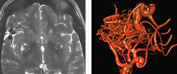 Figure 17: A right-sided Sylvian frontal AVM, primarily supplied by the MCA branches, is shown (left image). An anterior temporal feeding artery aneurysm is also found (right image).