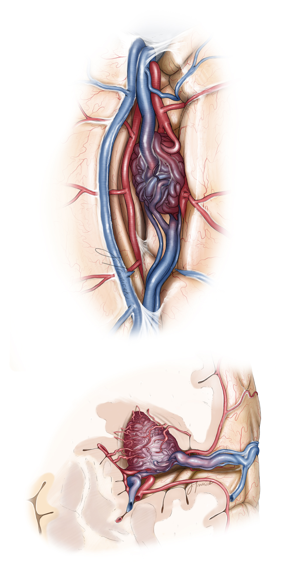 Figure 18: The vascular anatomy of a Sylvian frontal AVM is demonstrated. Please note the relationship of the malformation to the MCA (M2 and M3) branches. Transit or bystander vessels must be recognized from feeding vessels (surgeon's view, top). The superficial Sylvian veins participate in the drainage system of the AVM and are protected during the fissure split. These veins can tether down the the frontal lobe to the temporal lobe and limit the flexibility of the required operative corridors. The anatomy of the malformation is further dissected in a coronal image (bottom illustration).