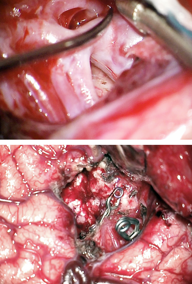 Figure 20: The MCA bifurcation feeding aneurysm was clip ligated (upper image). Next, the feeding MCA terminal branches were first clip ligated using temporary clips, their identity was reliably confirmed via their dissection to the level of the nidus and finally they were sacrificed using permanent clips and the AVM delivered (lower image).