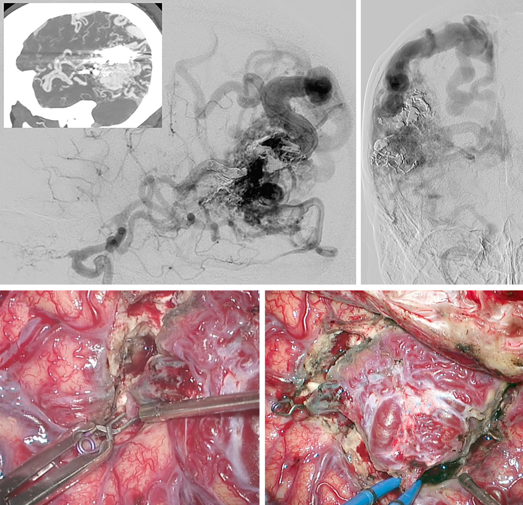 Figure 5: A large complex right-sided lateral temporoparietal AVM is shown (lateral and anteroposterior ICA injections-upper images). The MCA feeders (left lower image) and P2 feeders were clipped and transected. Temporary venous occlusion (right lower photo) confirmed adequate nidal devascularization, after which the AVM was delivered.