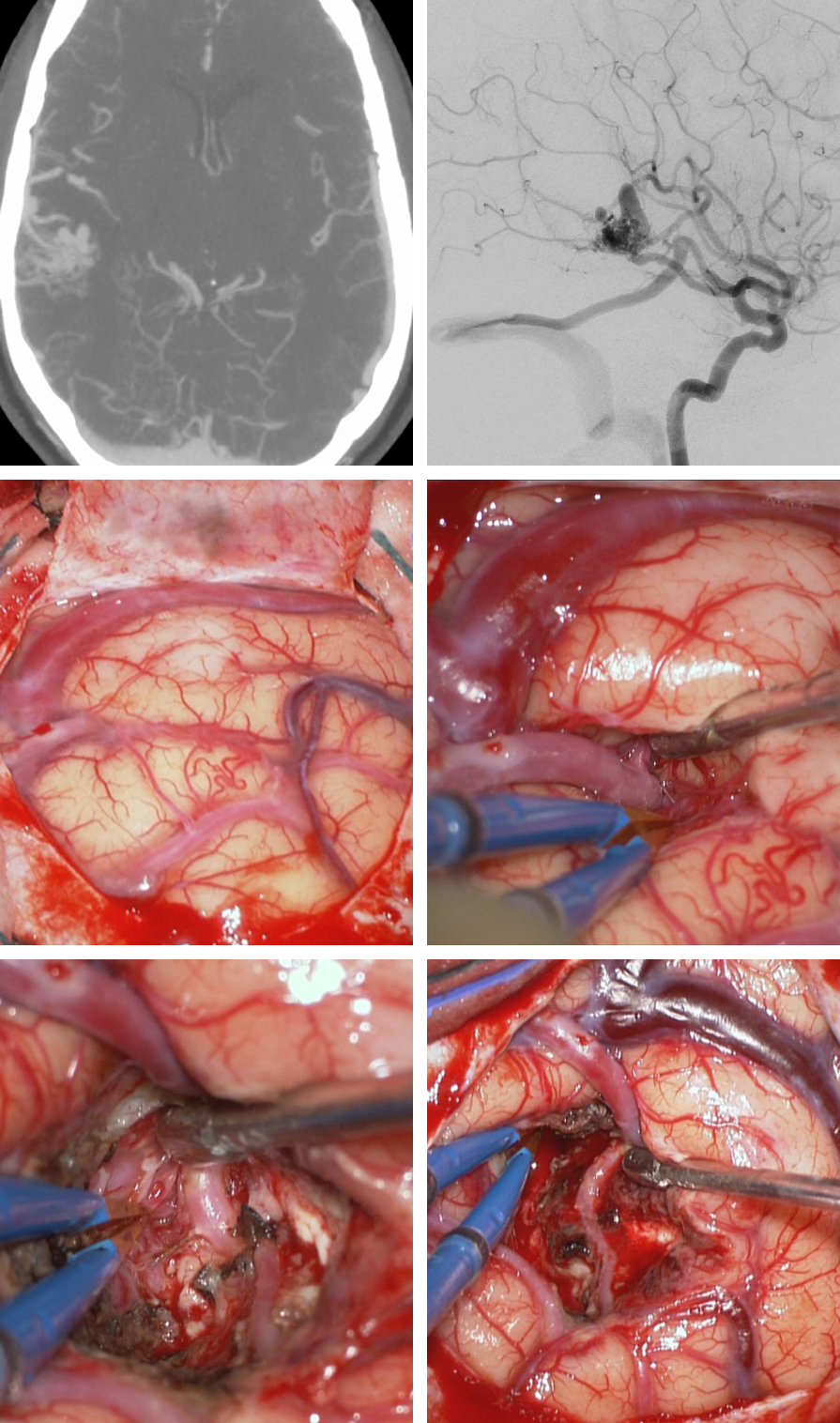Figure 6: A ruptured lateral temporal AVM underwent resection. Note the large arterialized vein of Labbe (first row). A right temporal craniotomy was completed using a linear incision and the large distal MCA feeding vessel was identified by means of intersulcal dissection(secondrow). This vessel was assumed to be  en passage  and provided numerous feeders to the AVM along its length. The nidus was situated just superior to this  en passage  artery;the artery was skeletonized and the nidus removed (last row). Note the darker vein of Labbe at the end of resection. The preservation of  en passage  arteries is important for avoidance of distal ischemia.