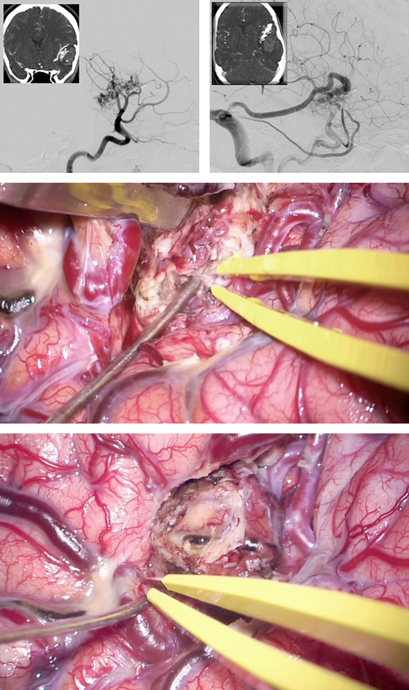 Figure 9: A ruptured left-sided Sylvian temporal AVM is demonstrated. The early and late arterial phases of the oblique ICA angiogram are included (upper images). Wide Sylvian fissure dissection allowed skeletonization of the MCA branches and disconnection of the AVM feeding vessels (middle photo). Following disconnection of the nidus, the draining veins were sacrificed; the remaining cortical veins turned dark blue (lower photo).