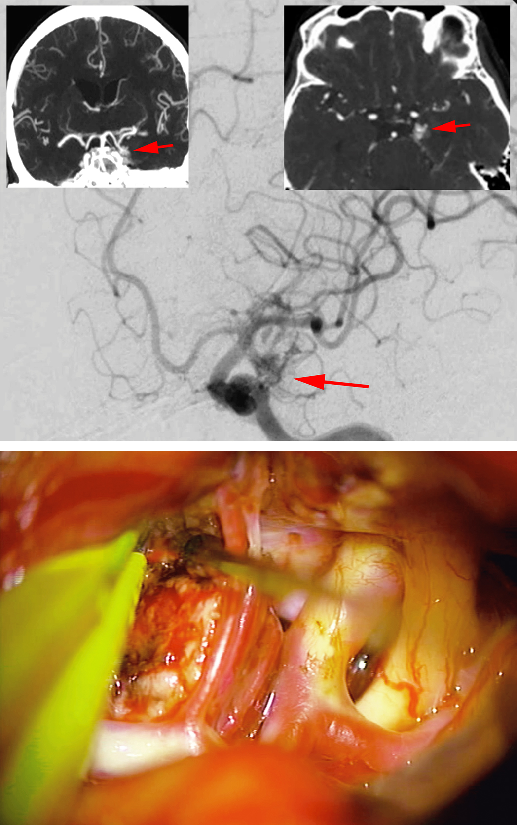 Figure 10: A left-sided anteromedial temporal AVM is shown on an oblique ICA angiogram (top image). CT angiogram images (insets) localized the AVM. The feeding vessels were arising from the anterior temporal artery, thalamoperforatoring branches of the PCoA, hippocampal artery, posterior temporal arteries, and the P2 segment. Venous drainage was routed medially toward the basal vein of Rosenthal. I resected the lesion via the transsylvian approach. The anterior temporal artery was draped over the AVM (lower image).