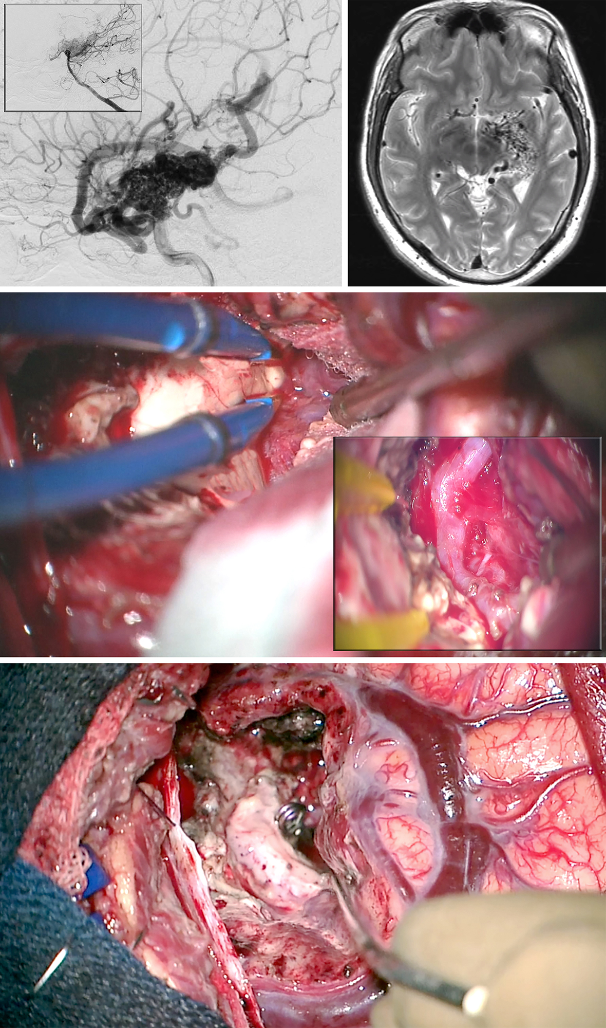 Figure 16: A large posterior medial temporal AVM, primarily fed by the anterior choroidal artery, is shown (lateral ICA and vertebral artery, inset, angiograms-upper images). I used the transcortical transventricular transchoroidal approach in this case (middle photo). The anterior choroidal artery was exposed within the choroidal fissure through the temporal horn (middle photo-inset). After disconnection of the AVM, the anterior choroidal artery was sacrificed at the level of the nidus and the AVM extracted (lower photo). All superficial veins turned dark blue.