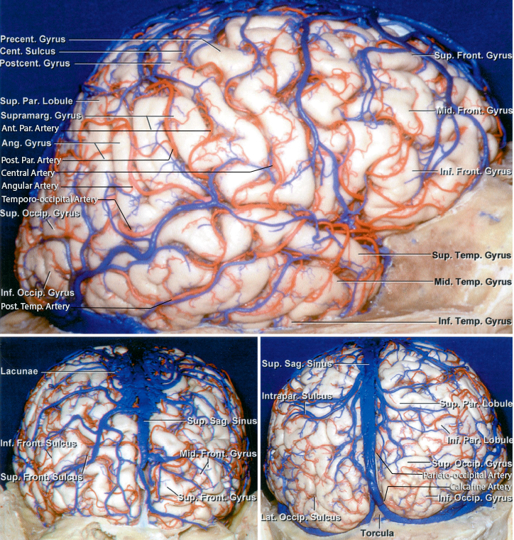 Figure 1: Surface anatomy of the lateral parietal and occipital lobes is shown (images courtesy of AL Rhoton, Jr).