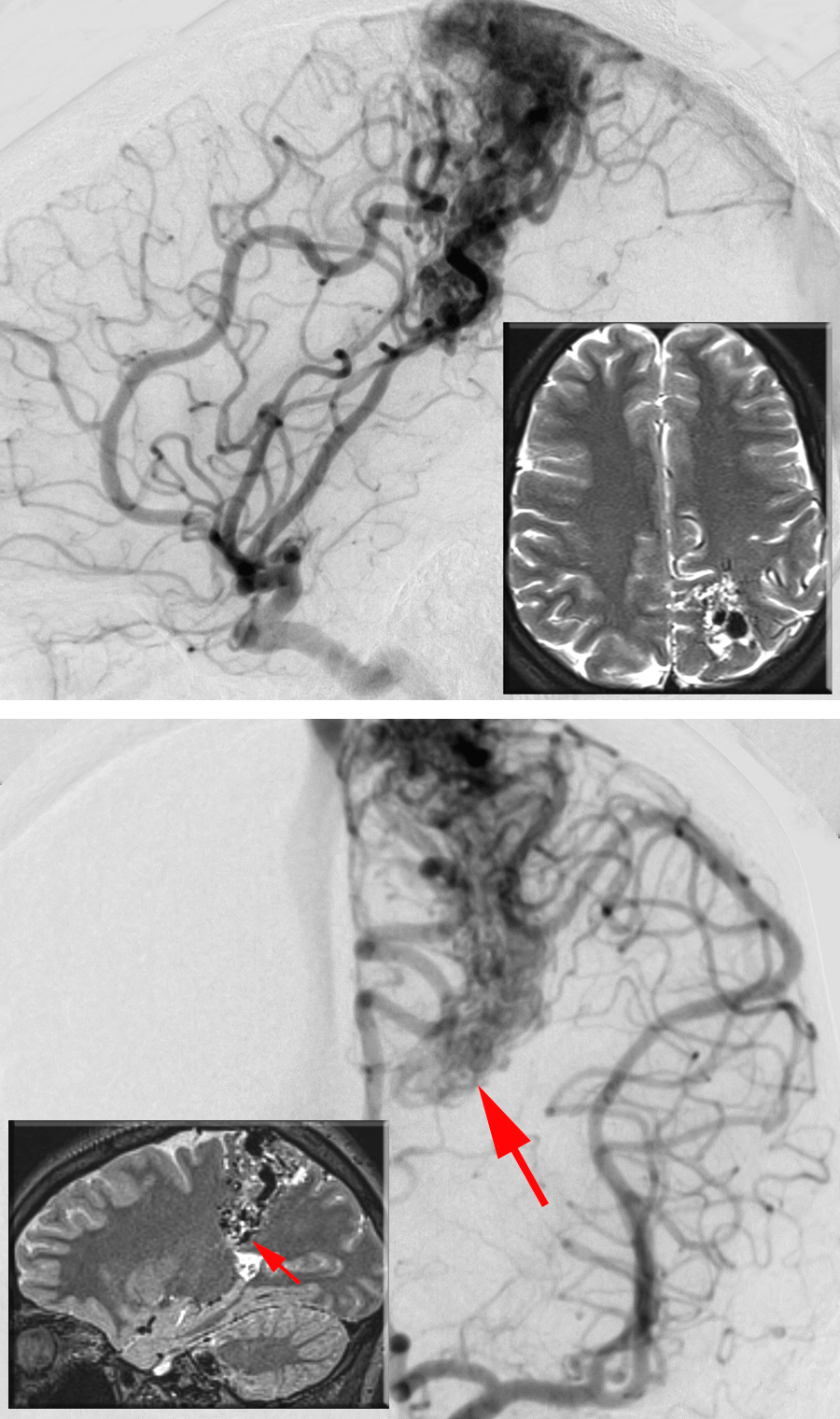 Figure 5: A lateral parietal AVM is shown on lateral (upper image) and anteroposterior (lower image) left-sided ICA angiograms. The inset MRIs illustrate the location of the AVM. The deep ependymal/choroidal feeding vessels near the ventricle (arrows) can be a challenging source of intraoperative bleeding.