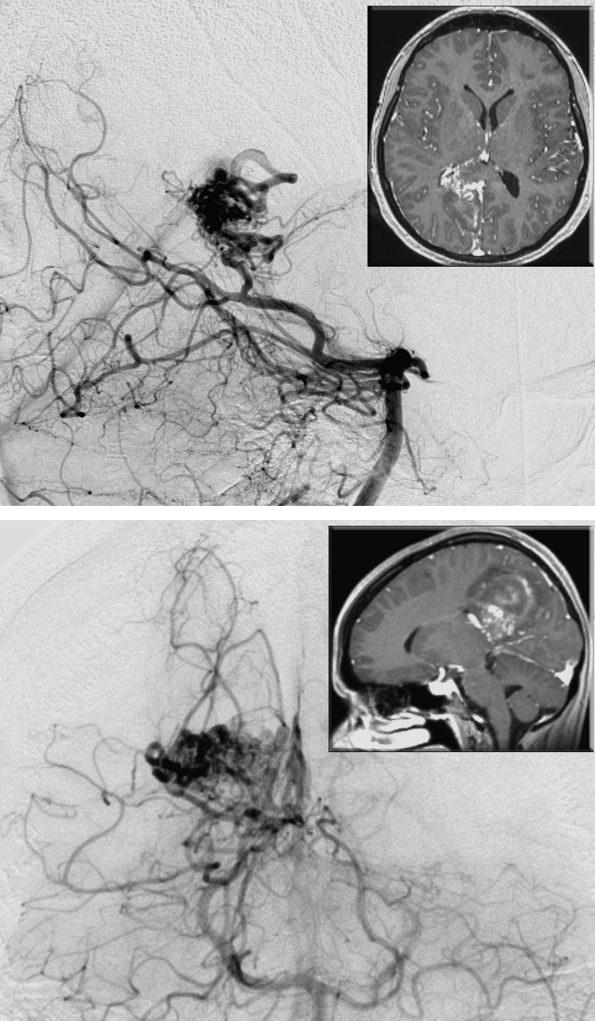 Figure 7: This hemorrhagic medial parietal AVM is primarily fed by the branches of the distal PCA. Note the lateral (upper image) and anteroposterior (lower image) vertebral angiograms and corresponding MRIs (insets). The nidus reaches the atrium. The ipsilateral interhemispheric approach may not safely reach the periventricular extent of the lesion.