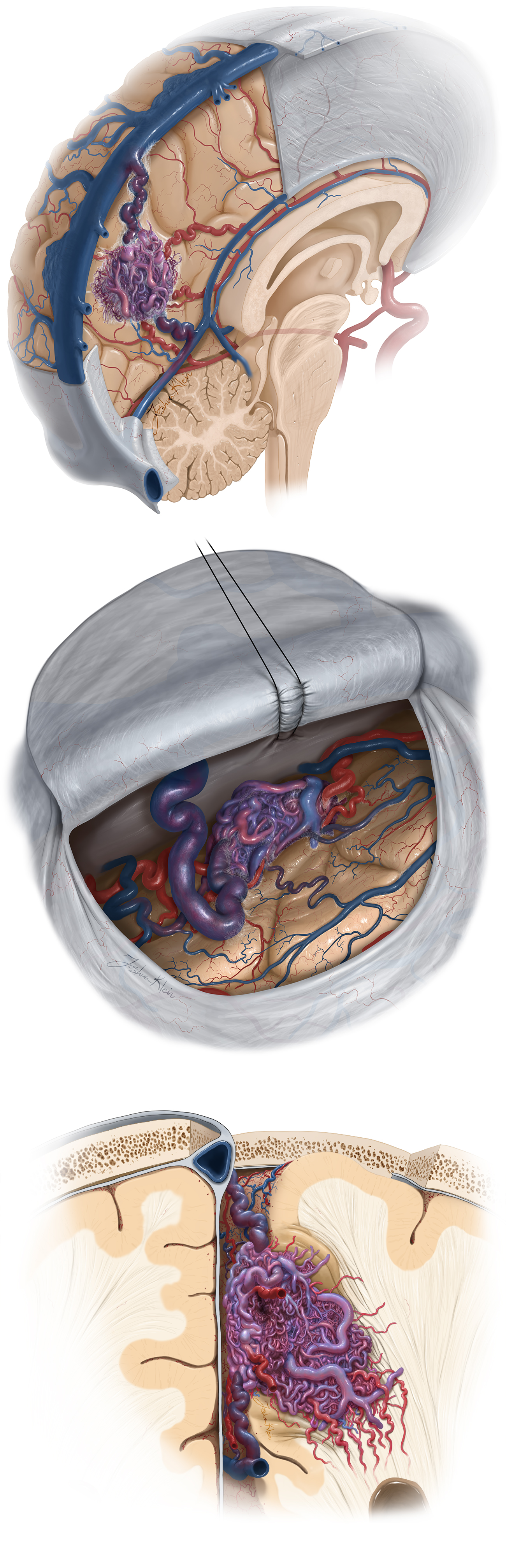 Figure 6: The angioarchitecture of this AVM subtype is demonstrated. Note the abovedescribed feeding arteries and draining veins. Larger AVMs reach the atrium and receive choroidal deep white matter feeders.