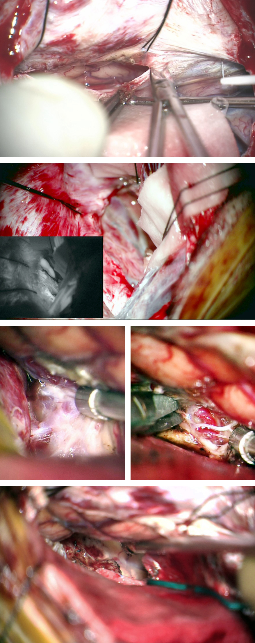 Figure 8: The contralateral interhemispheric transfalcine approach was used for medial parietal AVMs with extension toward the trigone. Note the transfalcine incisions to exposure the AVM in the top two images. The retention sutures in the falx and the falcine flaps maintained the exposure to the medial hemisphere. The draining veins and feeding arteries were readily exposed and nidus removal unveiled the atrium (lower two rows).
