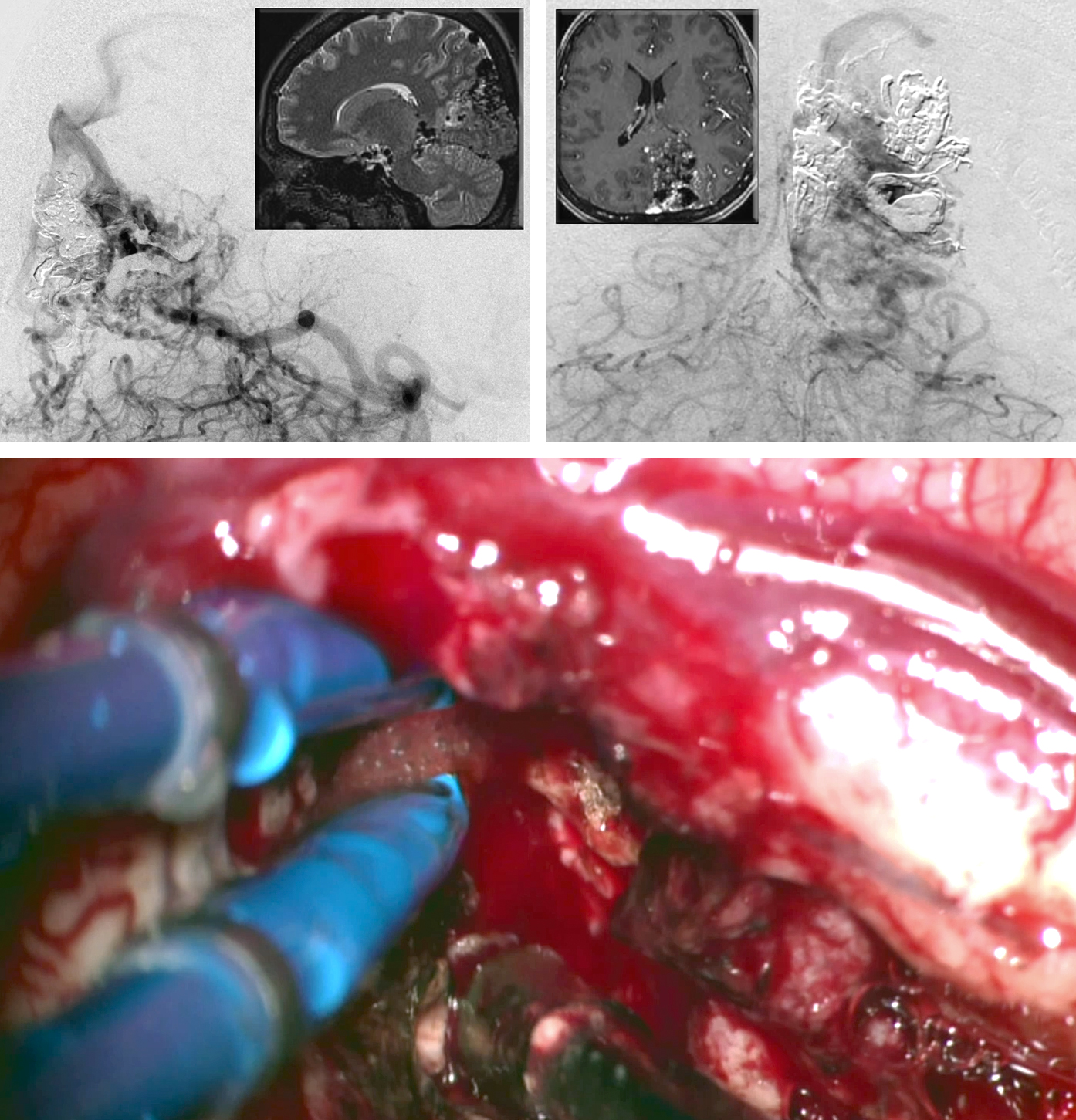 Figure 10: A paramedian parieto-occipital AVM is shown (upper images-lateral and anteroposterior vertebral angiograms). This lesion is primarily fed by the PCA. The preoperative overembolization of the larger feeding pedicles potentially led to the intraoperative findings of white matter feeder hypertrophy and excessive blood loss during disconnection of the white matter feeders (lower photo).
