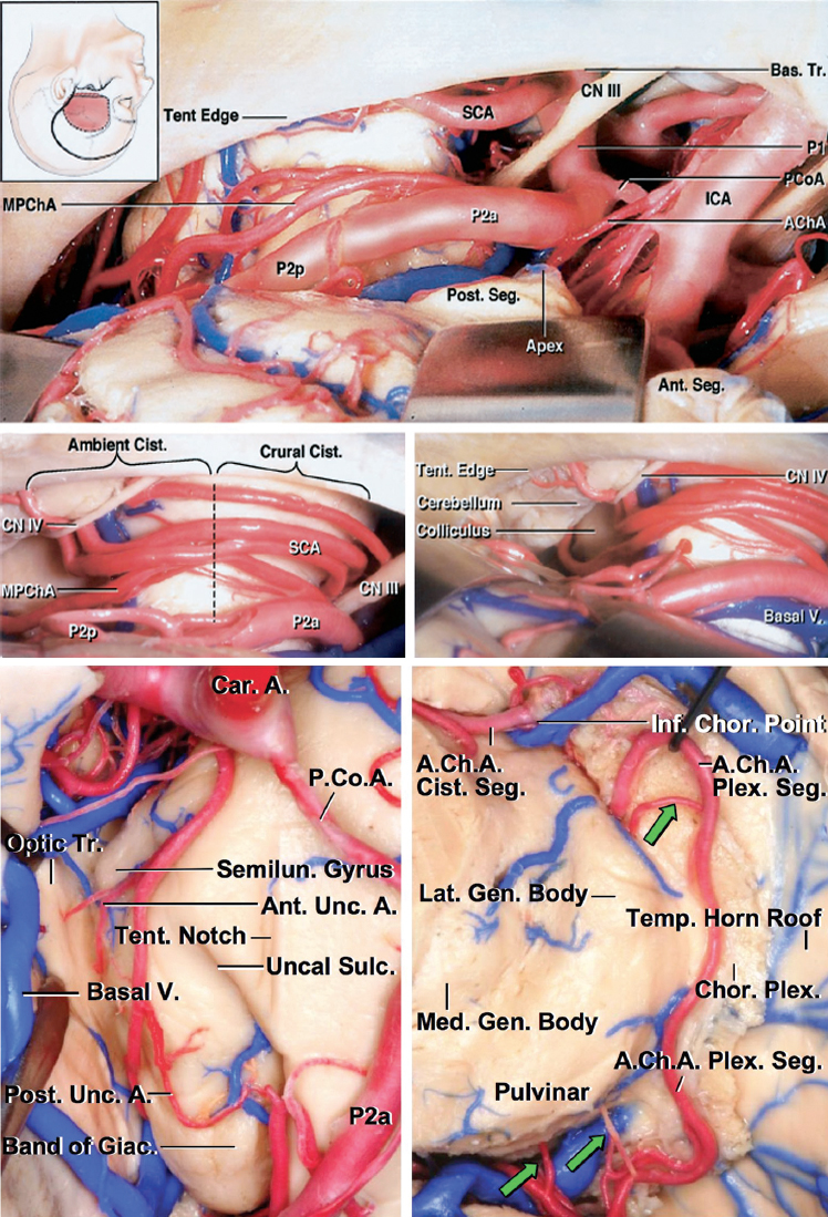 Figure 1: The microsurgical anatomy of the anterior choroidal artery (AChA) is shown. The images of the top two rows demonstrate the origin of the AChA via a left-sided subtemporal approach. Note the location of the medial posterior choroidal artery (MPChA). The bottom images disclose the inferior choroidal point after removal of the lateral temporal neocortex. The inferior view of the relevant anatomy of the plexal segment and the corresponding perforating vessels (green arrows) are shown (images courtesy of AL Rhoton, Jr).