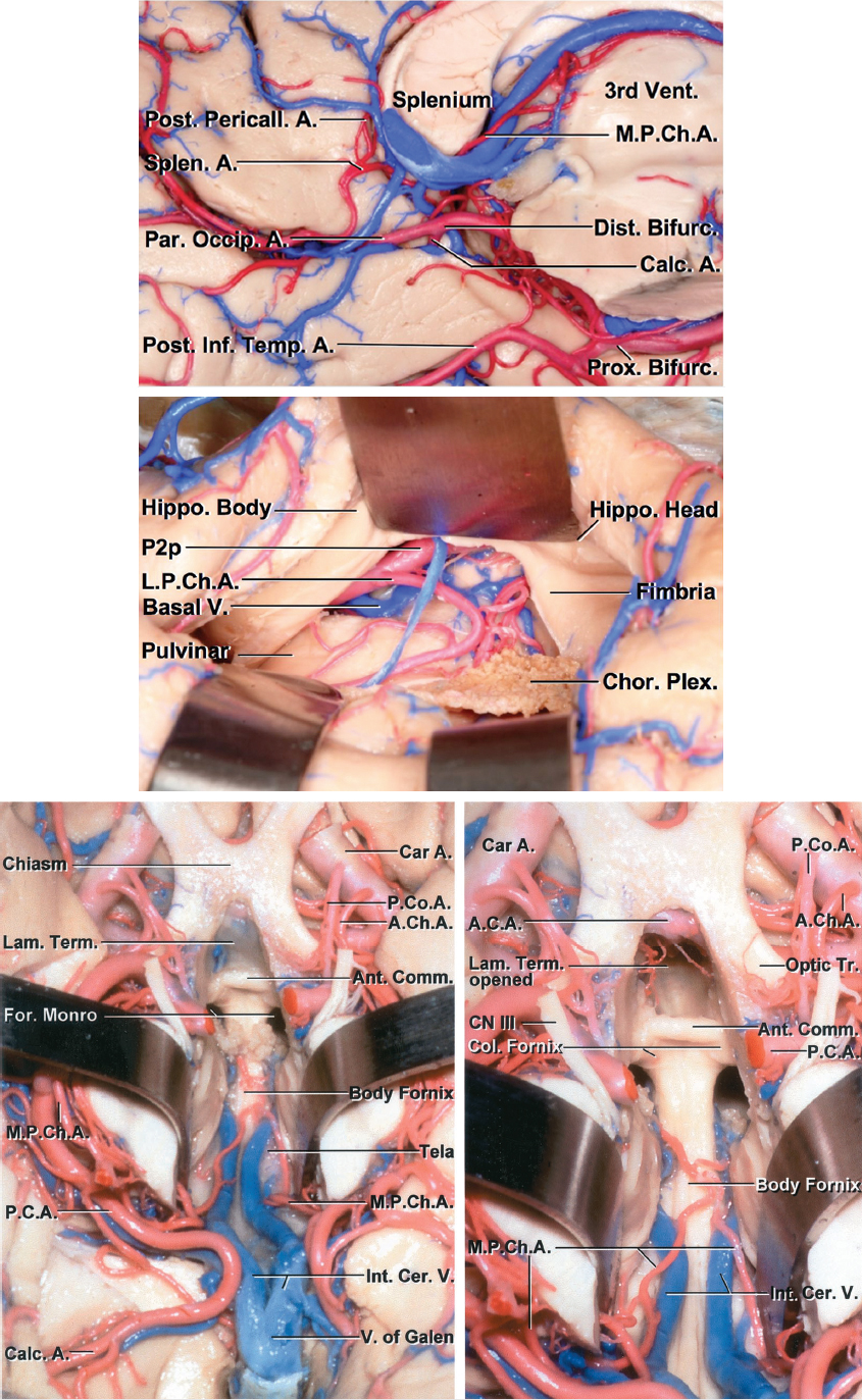 Figure 2: Please refer to Figure 1 for more anatomical details relevant to the MPChA and LPChA. The top sagittal photo in the current figure illustrates the anatomic relationship of the MPChA to the third ventricle. The middle image demonstrates the more proximal anatomy of the LPChA through the left temporal horn, whereas the bottom photo shows the MPChA anatomy relative to the third ventricle from an inferior point of view (images courtesy of AL Rhoton, Jr).