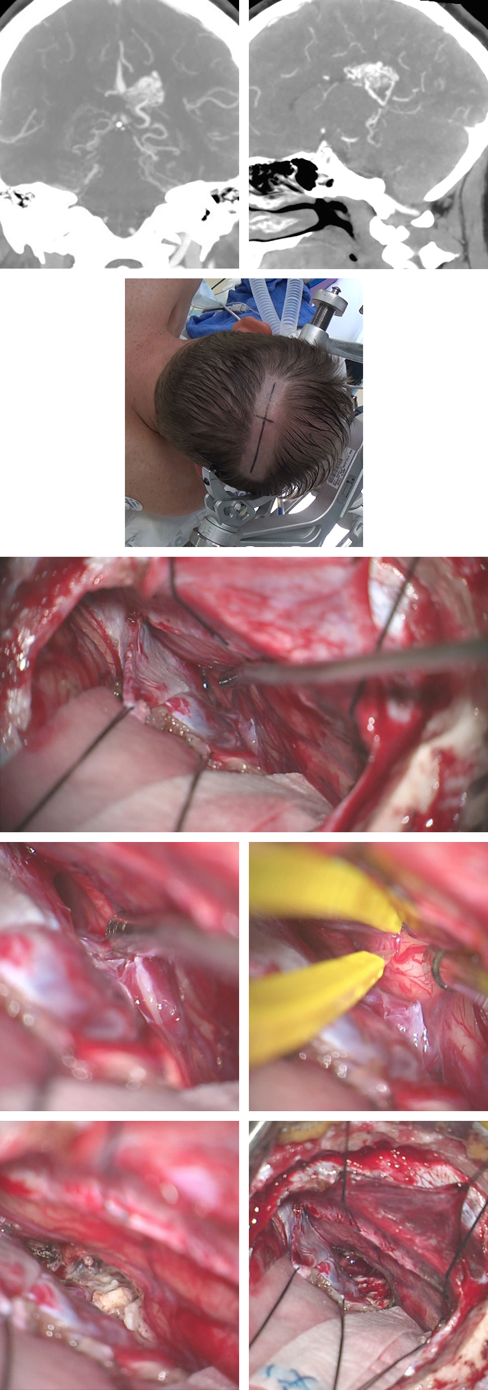 Figure 14: The use of the PITTA for resection of an AVM on the medial atrial wall and extending into the atrium is shown (top images). The patient was placed in the lateral position with the head turned 45 degrees toward the floor (second row). The right-sided posterior interhemispheric transfalcine approach is shown. Note the straight sinus within the leaflets of the falcotentorial dura just lateral to the tip of the suction device (third row). The primary draining vein is immediately identified over the corpus callosum and a cortical incision in the precuneus is made (fourth row). The AVM is skeletonized and the atrium is entered at the conclusion of nidal circumdissection (bottom row).