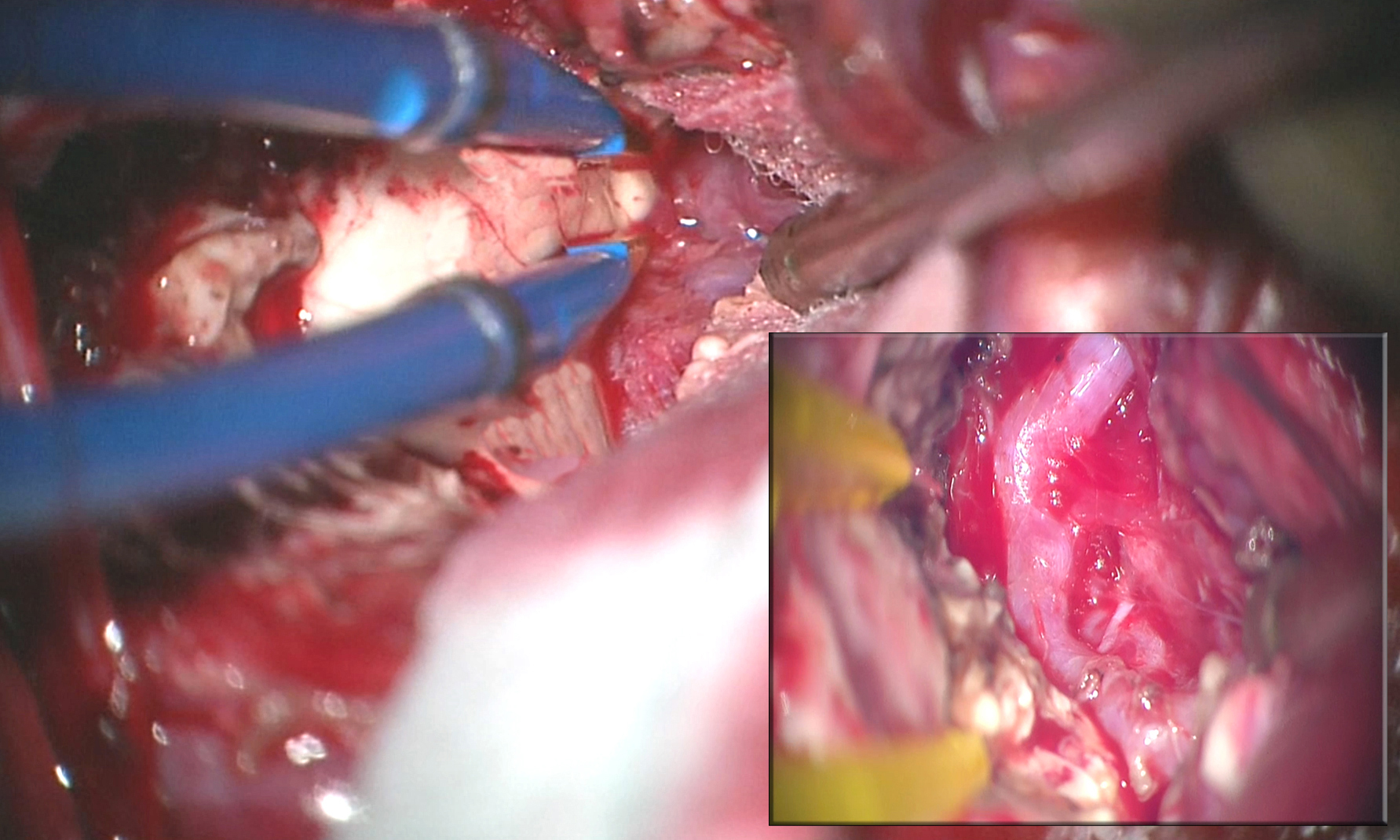 Figure 16: An intraoperative photo demonstrates the exposure of a left-sided temporal horn AVM. The lesion extended through the choroidal fissure and was intimately associated with the choroid plexus. Through the choroidal fissure, the hypertrophied feeding anterior choroidal artery was identified (inset).