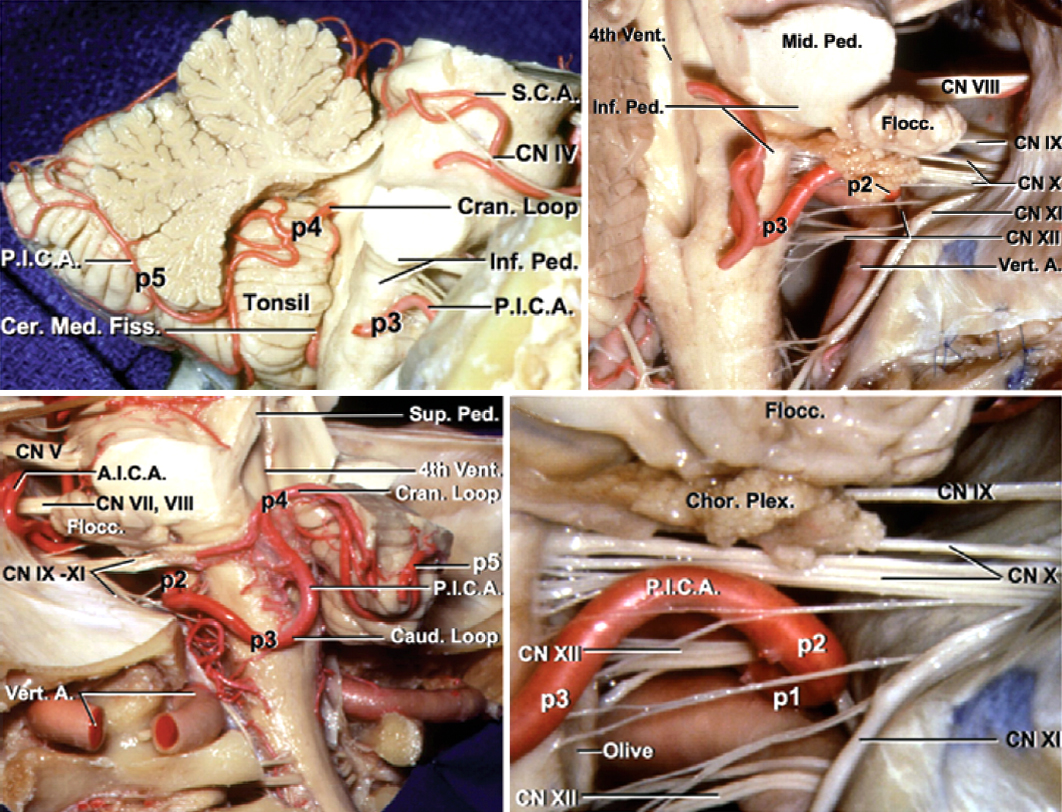 Figure 3: The relevant segmental anatomy of the PICA is shown (images courtesy of AL Rhoton, Jr).