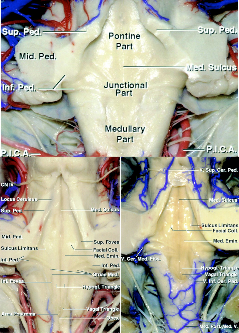 Figure 4: The surface anatomy of the fourth ventricle and its landmarks are shown. Please refer to the text for more details.